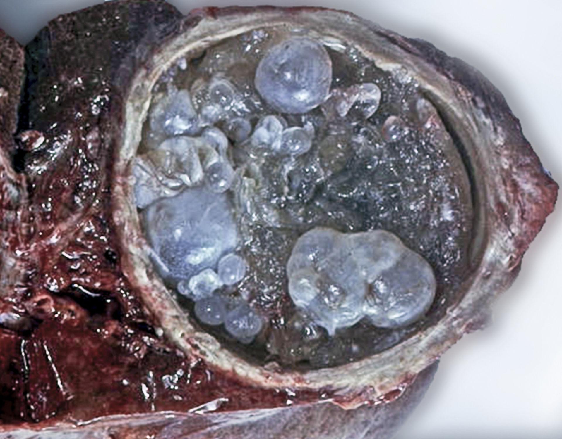 Echinokokkenzyste - Makroskopie