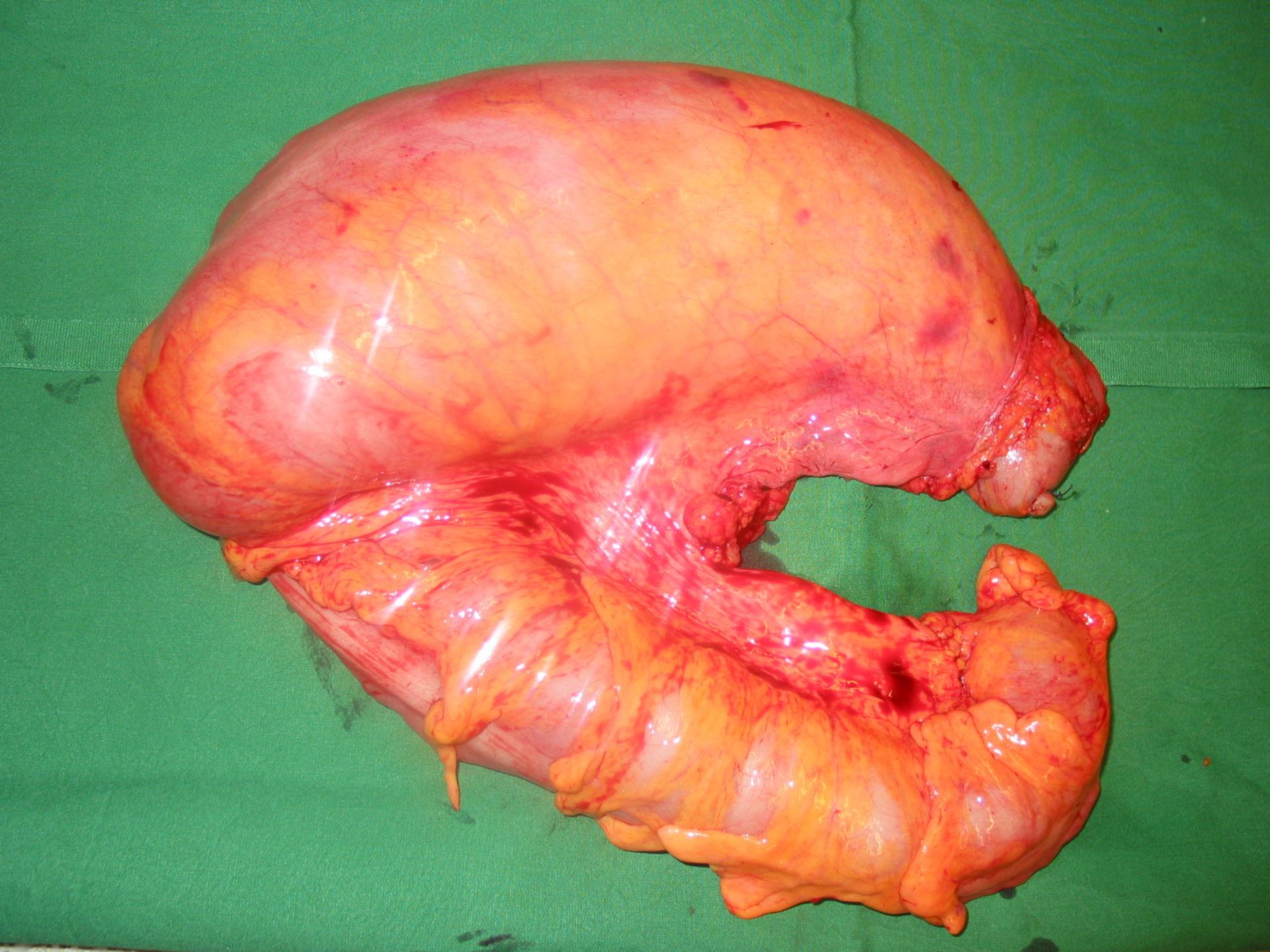 Morbus Hirschsprung - ODS (obstruktives Defäkationssyndrom)