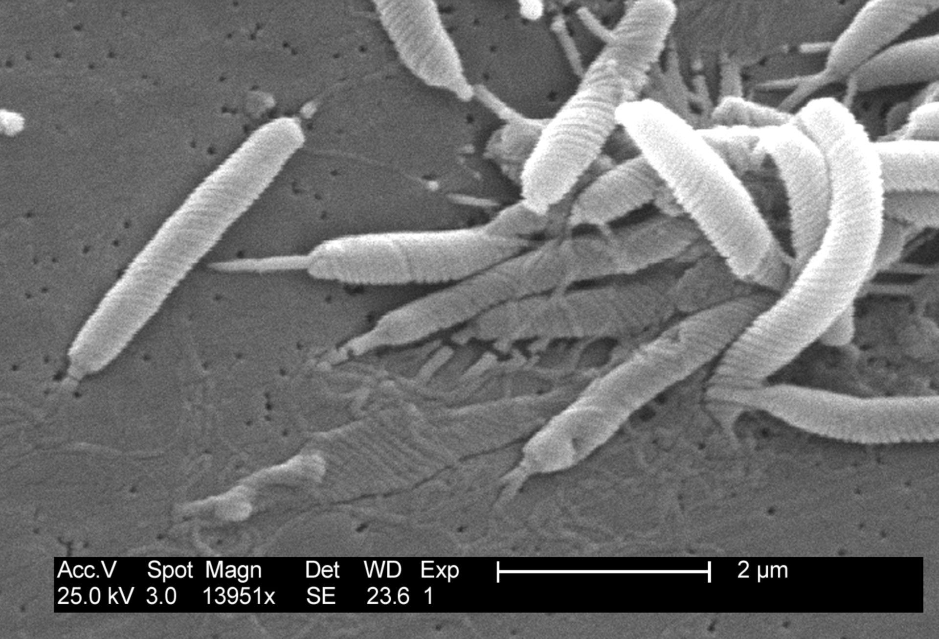 Helicobacter pylori SEM