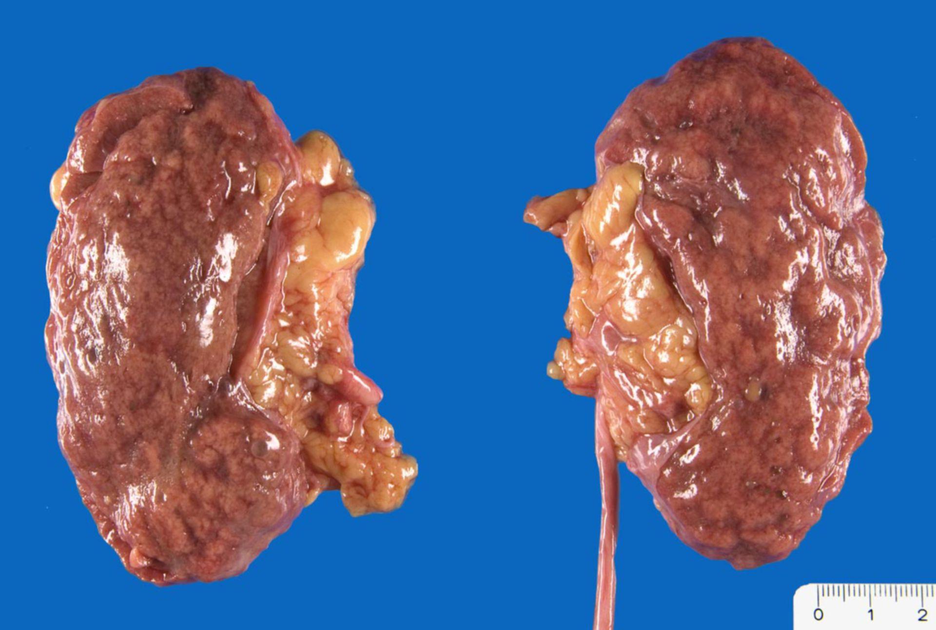 Vaskuläre Nierenrindennarben
