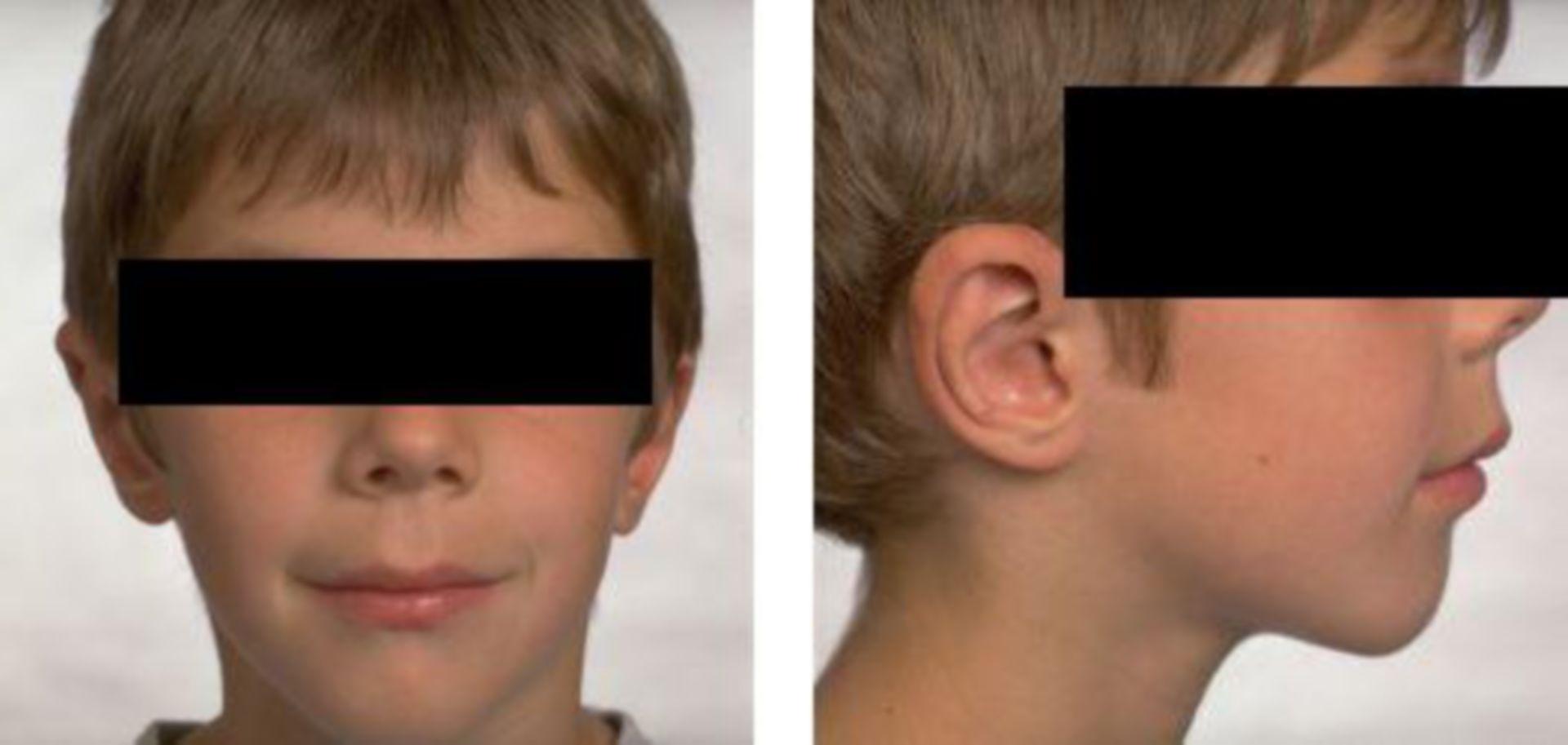 Nach Ohrenkorrektur