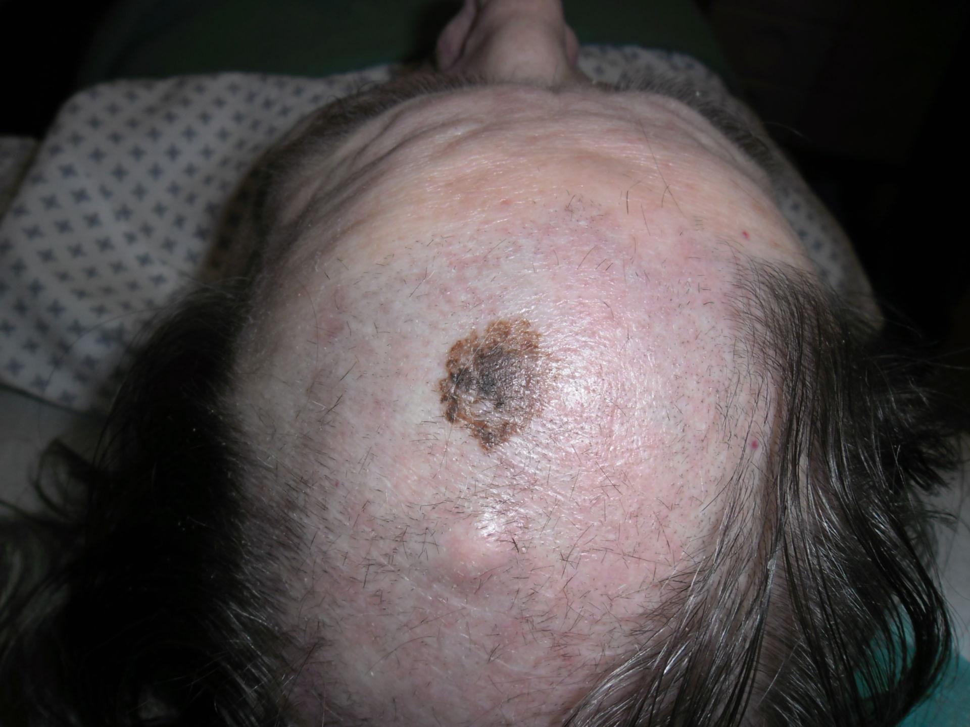 Melanoma maligno con ateroma