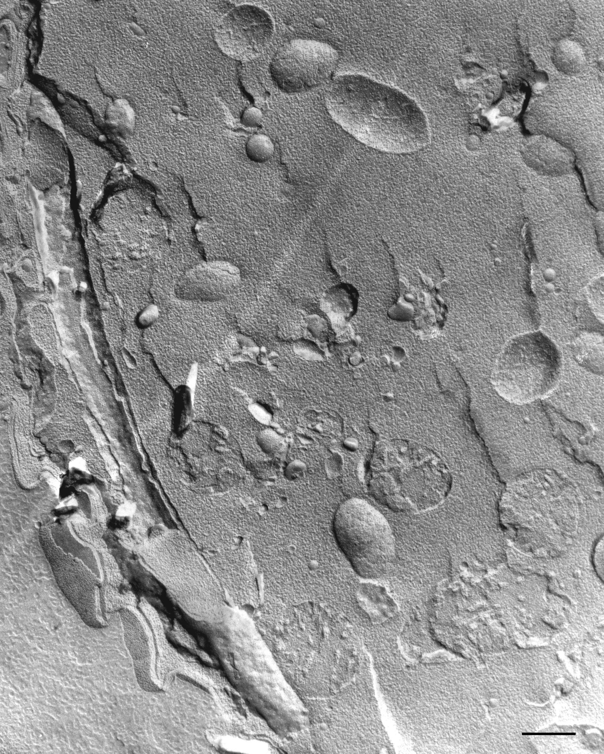 Vorticella microstoma (Cytoplasm) - CIL:36275