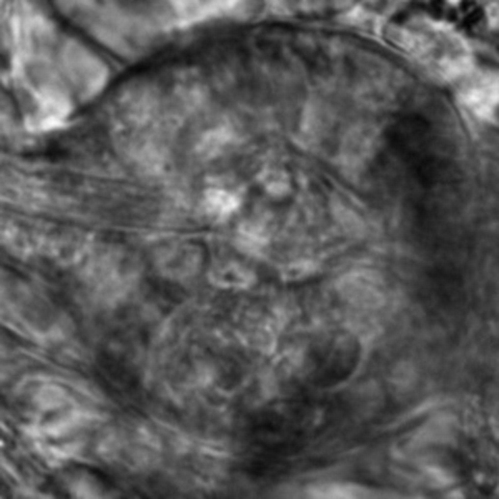 Caenorhabditis elegans - CIL:2652