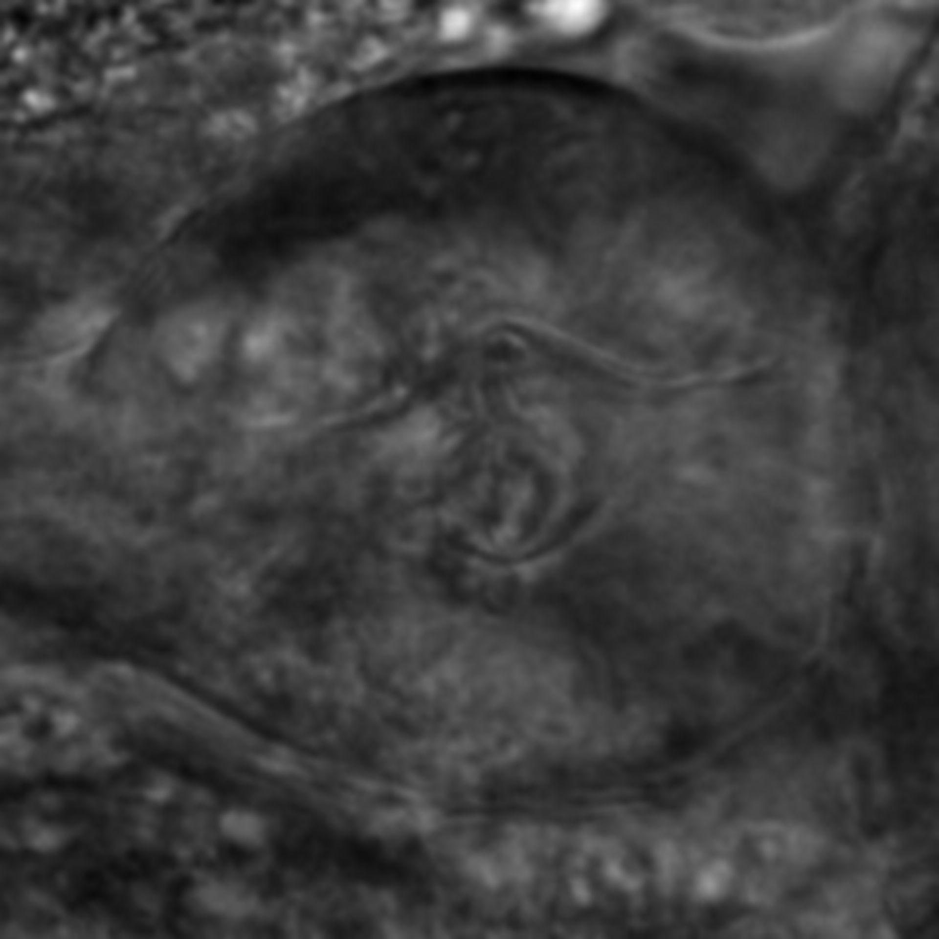 Caenorhabditis elegans - CIL:2829