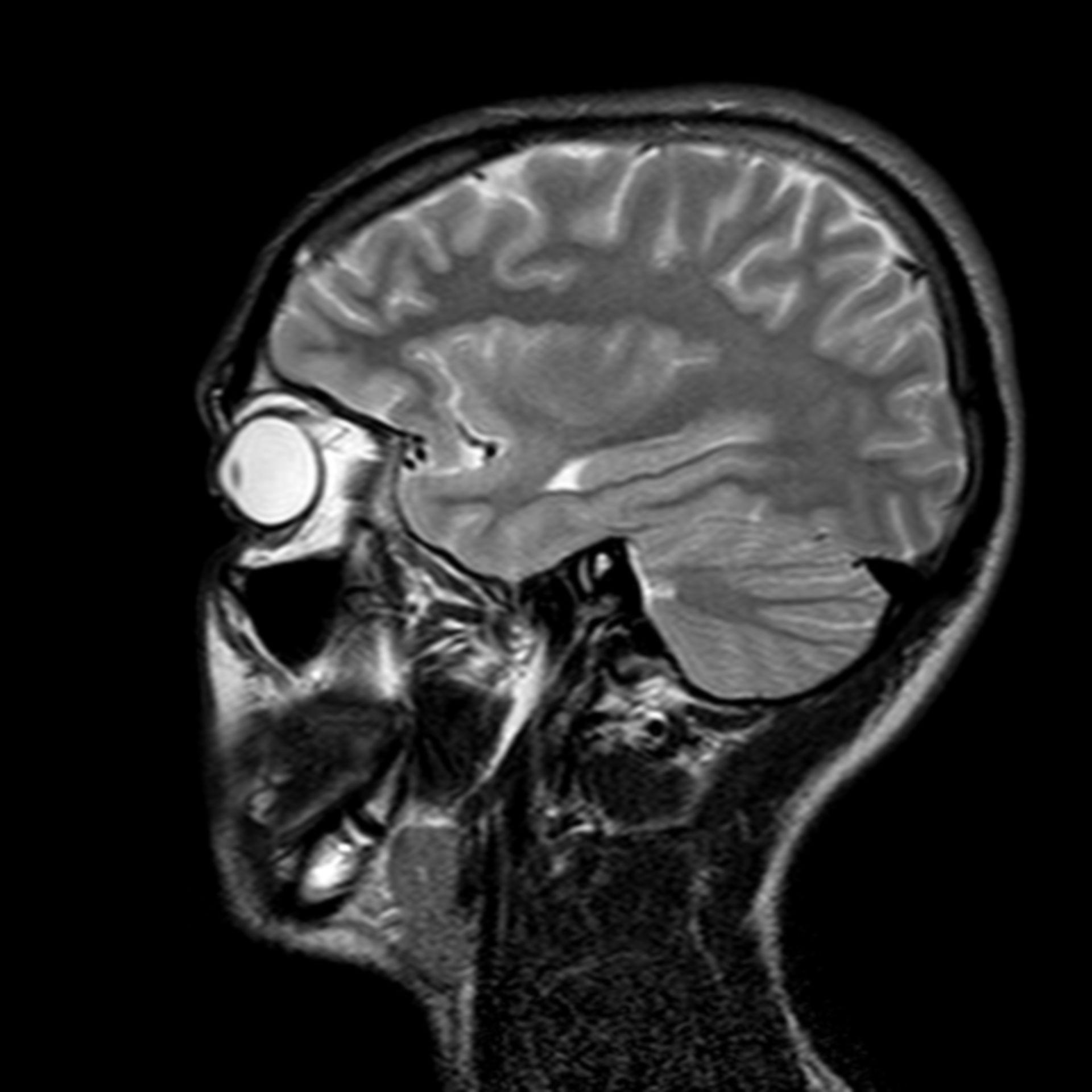 (24/34) MRT Schädel in Sagittalebene, T₂‐gewichtet
