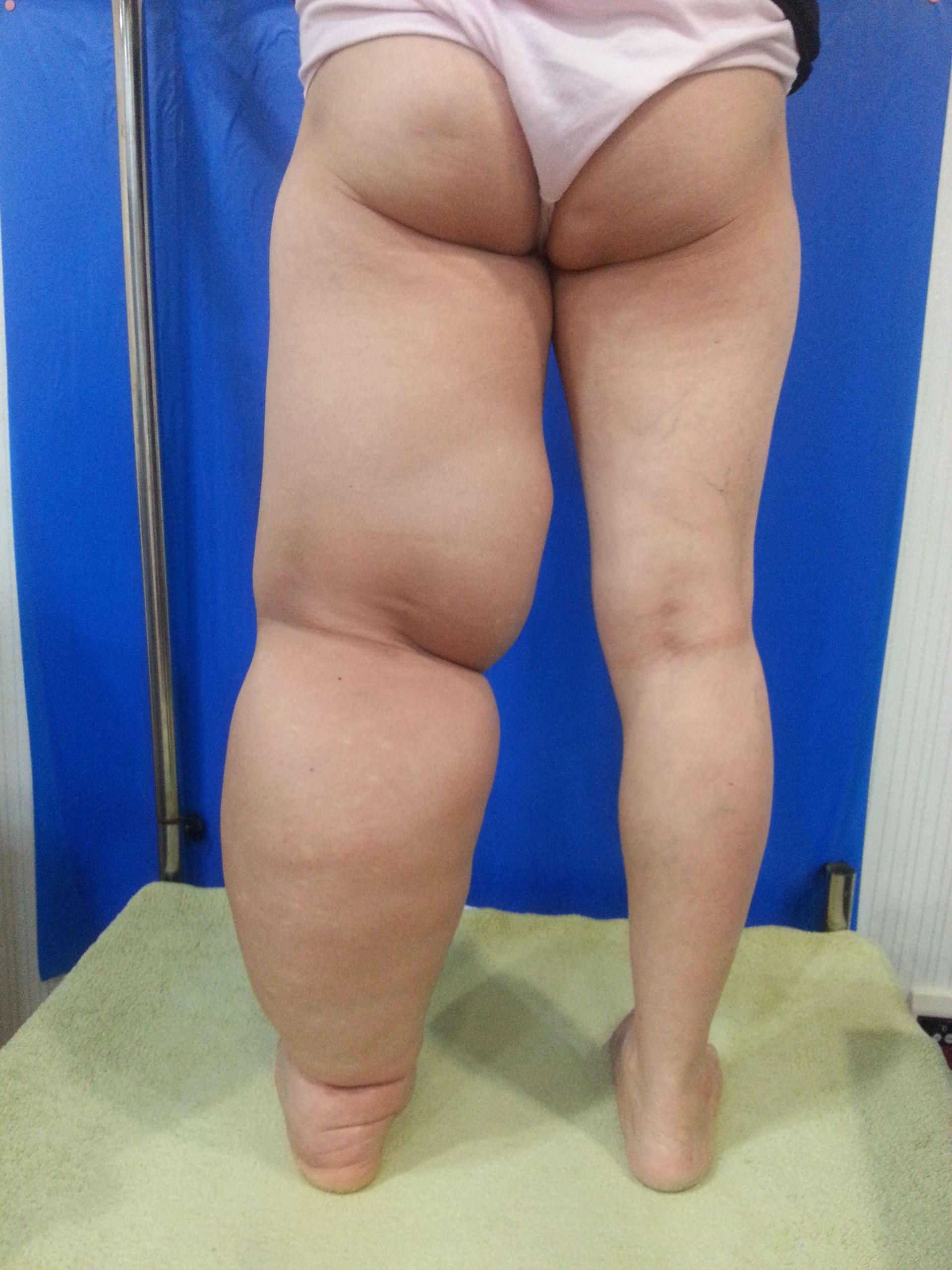 Lymphödem linkes Bein (1)