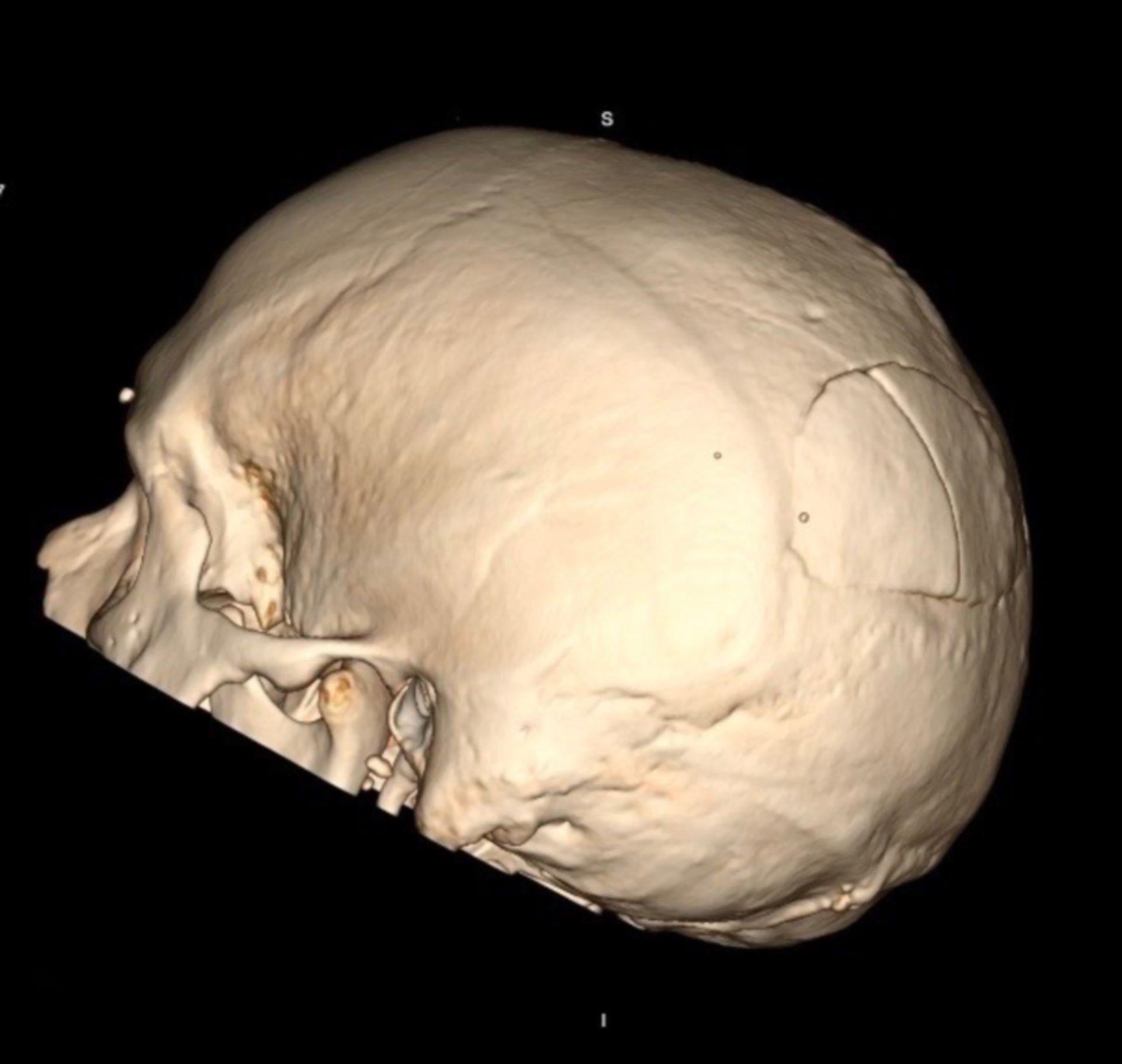 Frattura del cranio - sede temporale sinistra