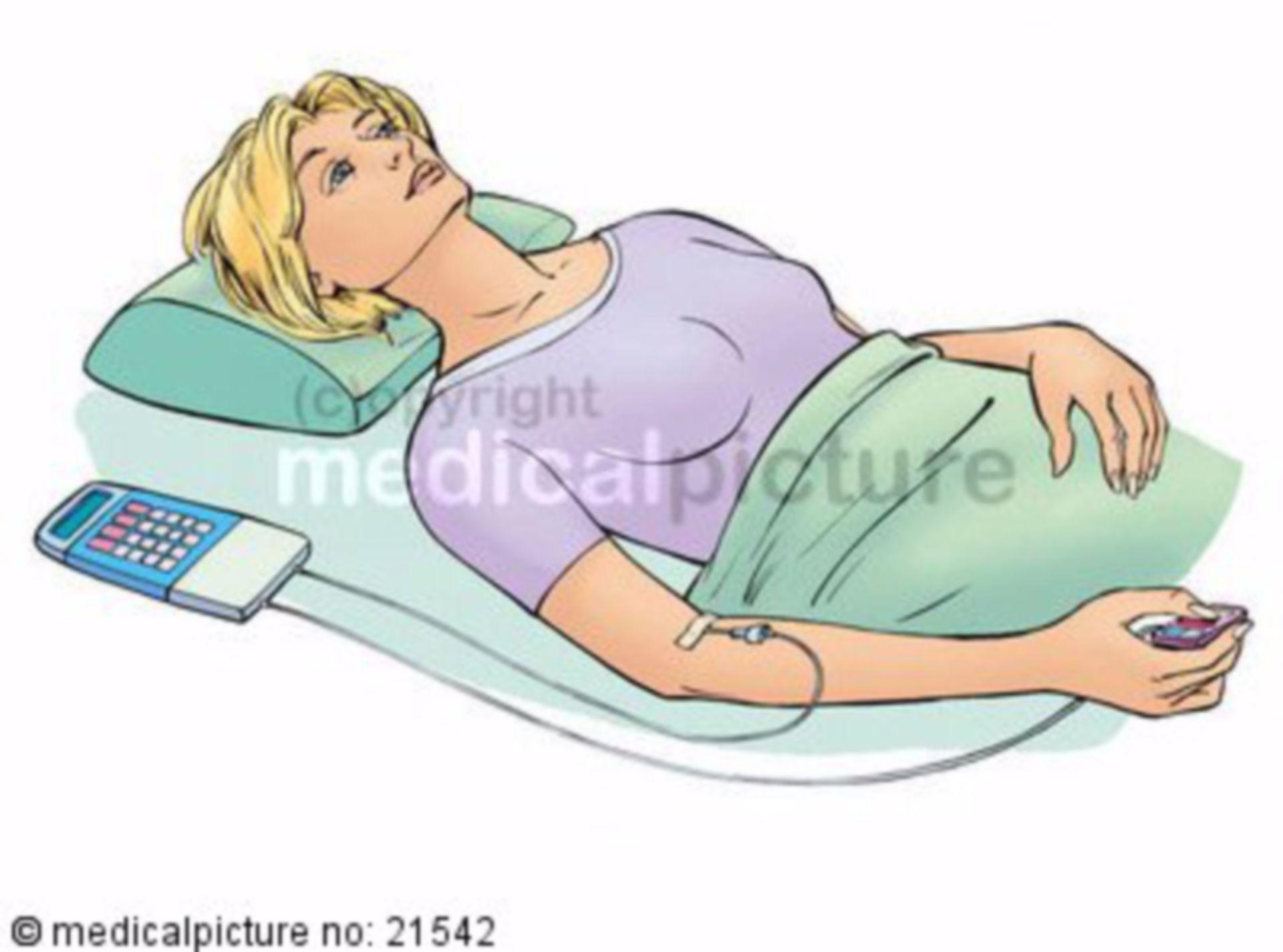 Schmerzpumpe PCA