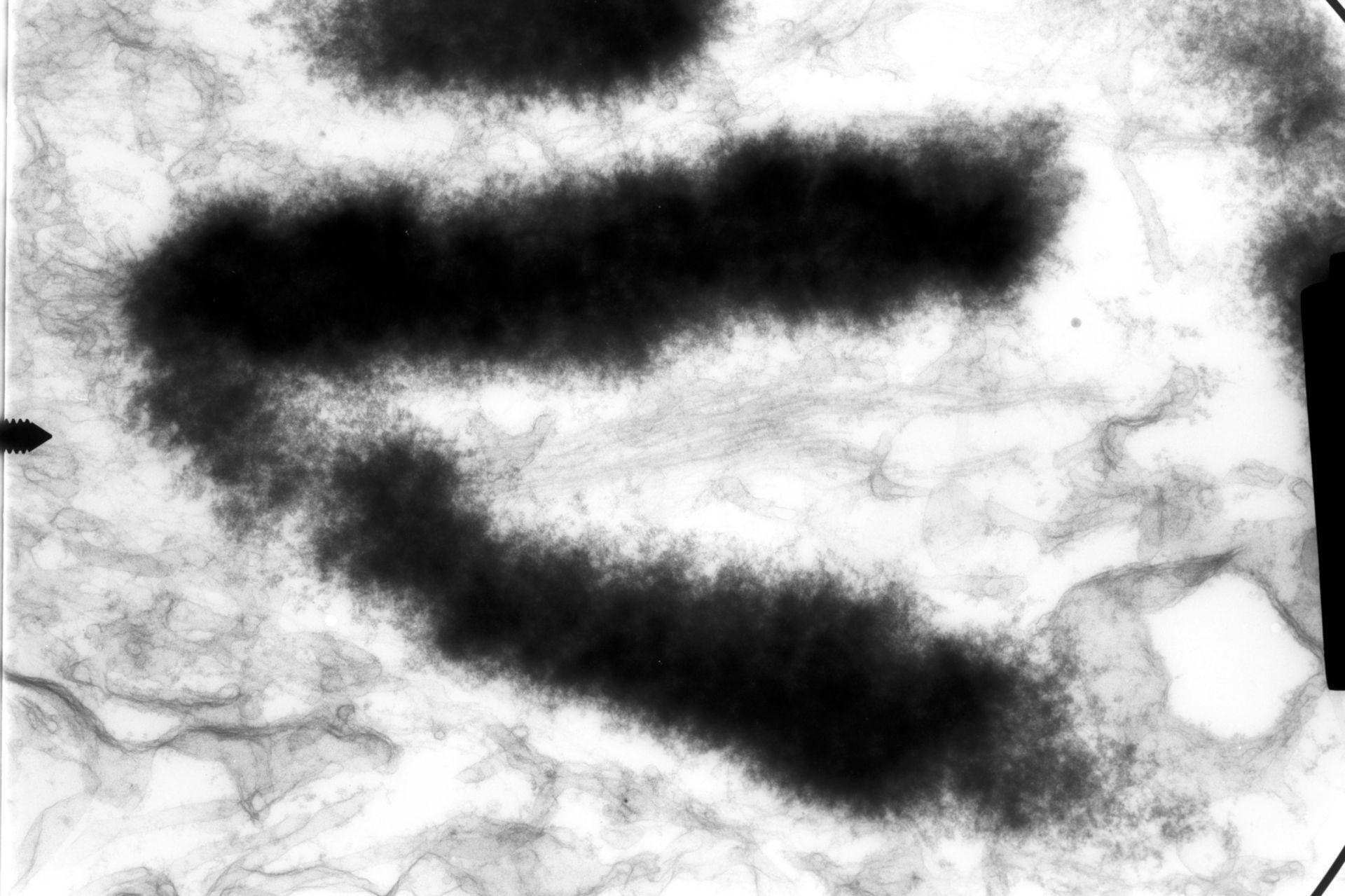 Haemanthus katharinae (Nuclear chromosome) - CIL:13187
