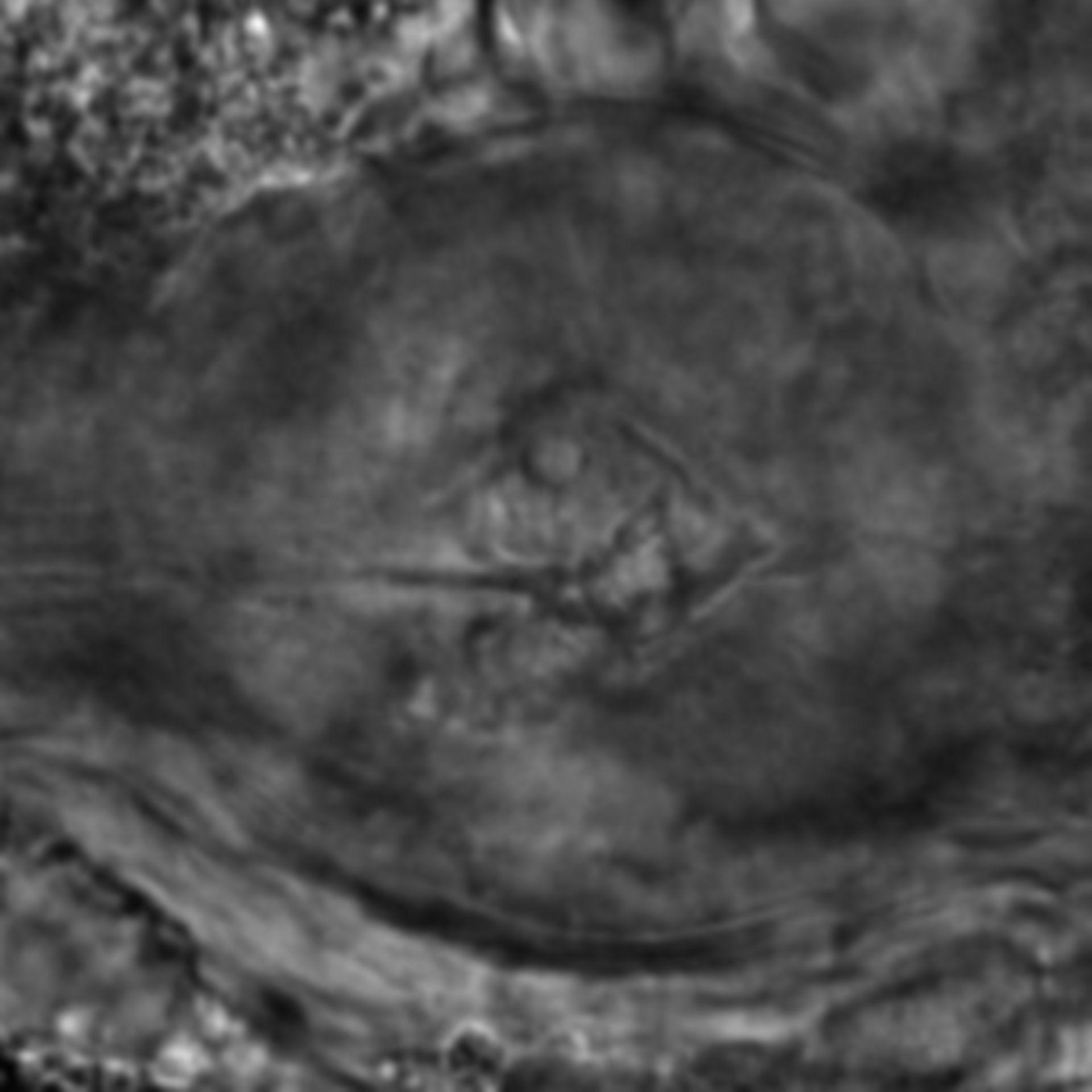 Caenorhabditis elegans - CIL:2254