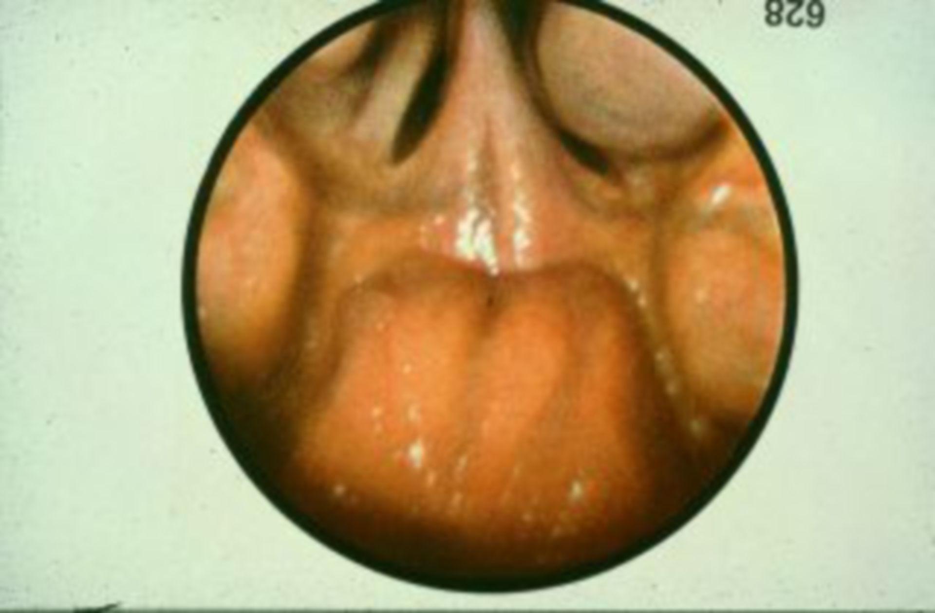 Tonsille faringee