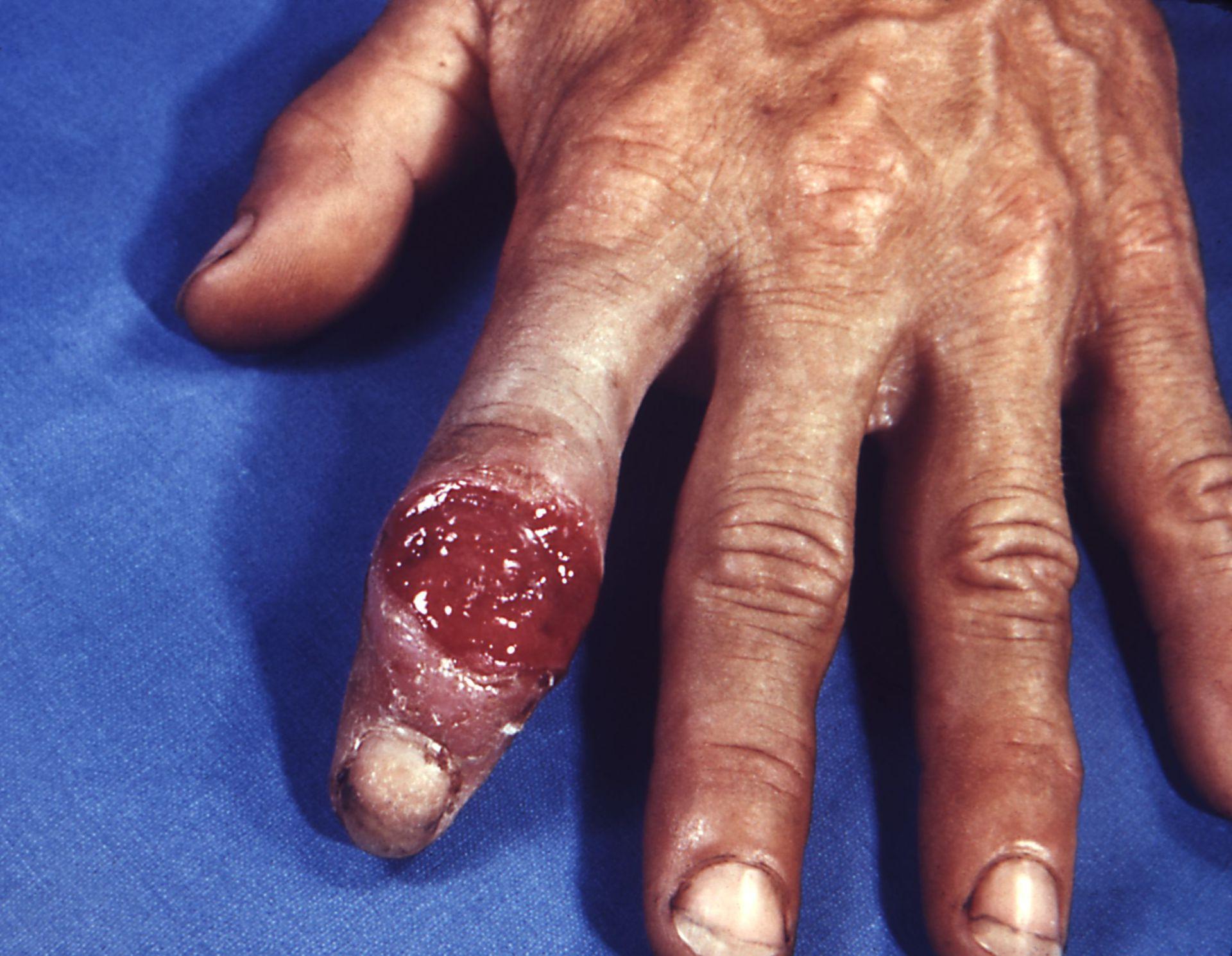 Ulcera nella sifilide