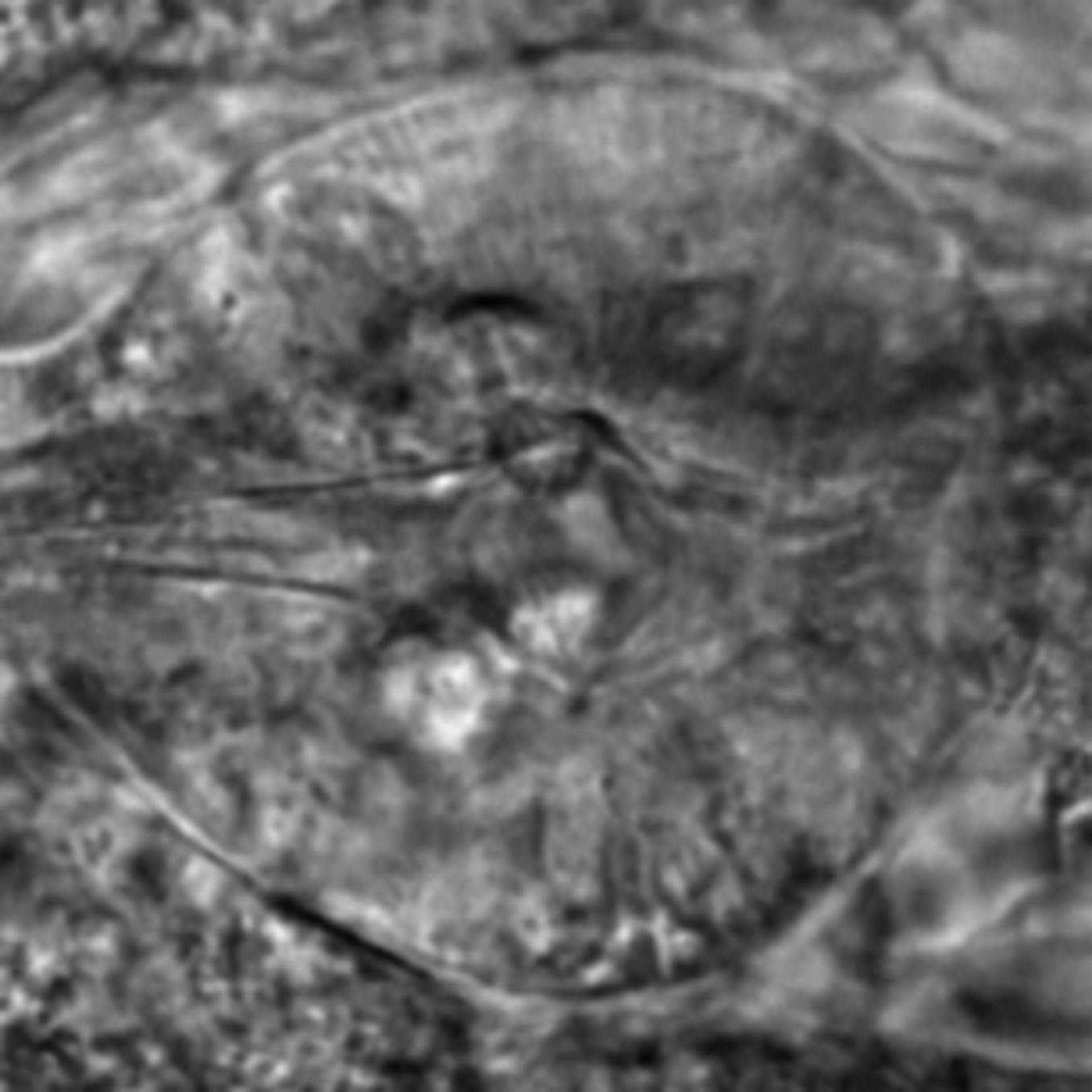 Caenorhabditis elegans - CIL:2607