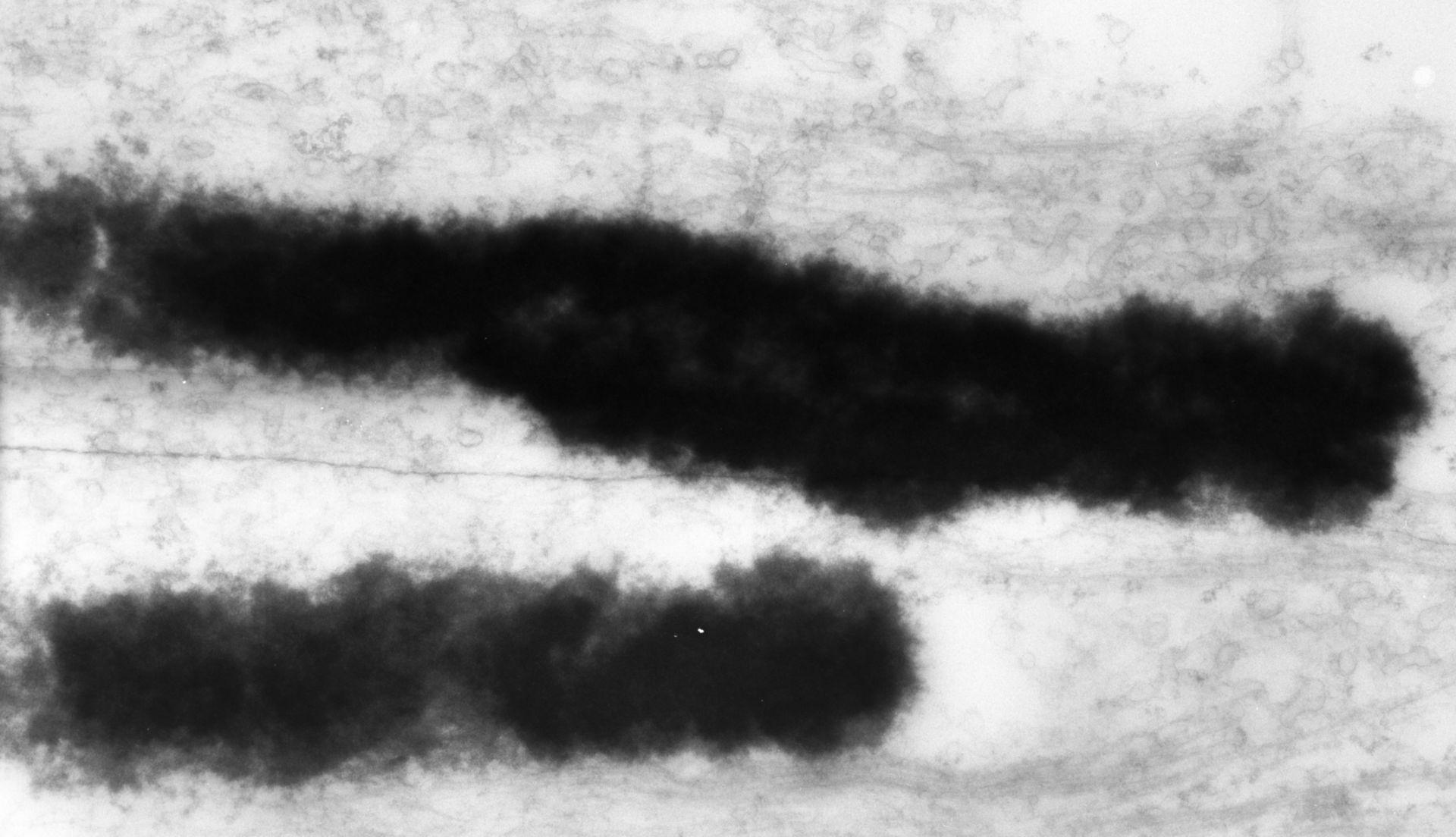 Haemanthus katharinae (Nuclear chromosome) - CIL:11915