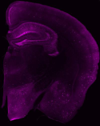 Blick ins Gehirn einer Maus: In den magenta leuchtenden Bereichen haben sich Tau-Proteine angesammelt. In einigen Nervenzellen (helle Flecken) ist die Konzentration besonders hoch. Zum Teil sind die Fortsätze (Dendriten) der Nervenzellen zu erkennen. © DZNE/Jens Wagner