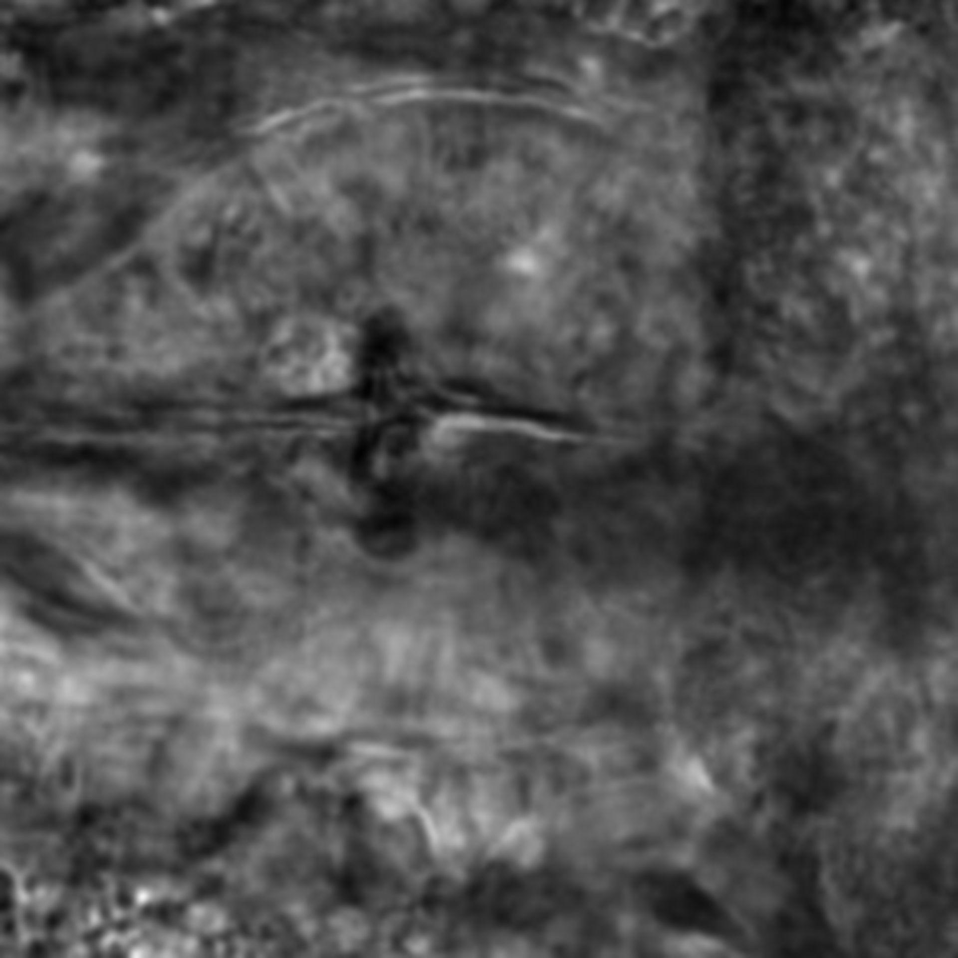 Caenorhabditis elegans - CIL:2299