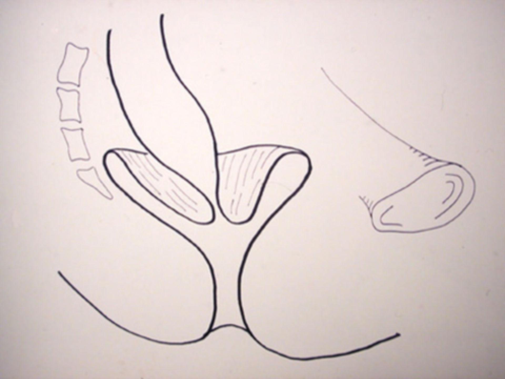 innerer Rektumprolaps (Schema)