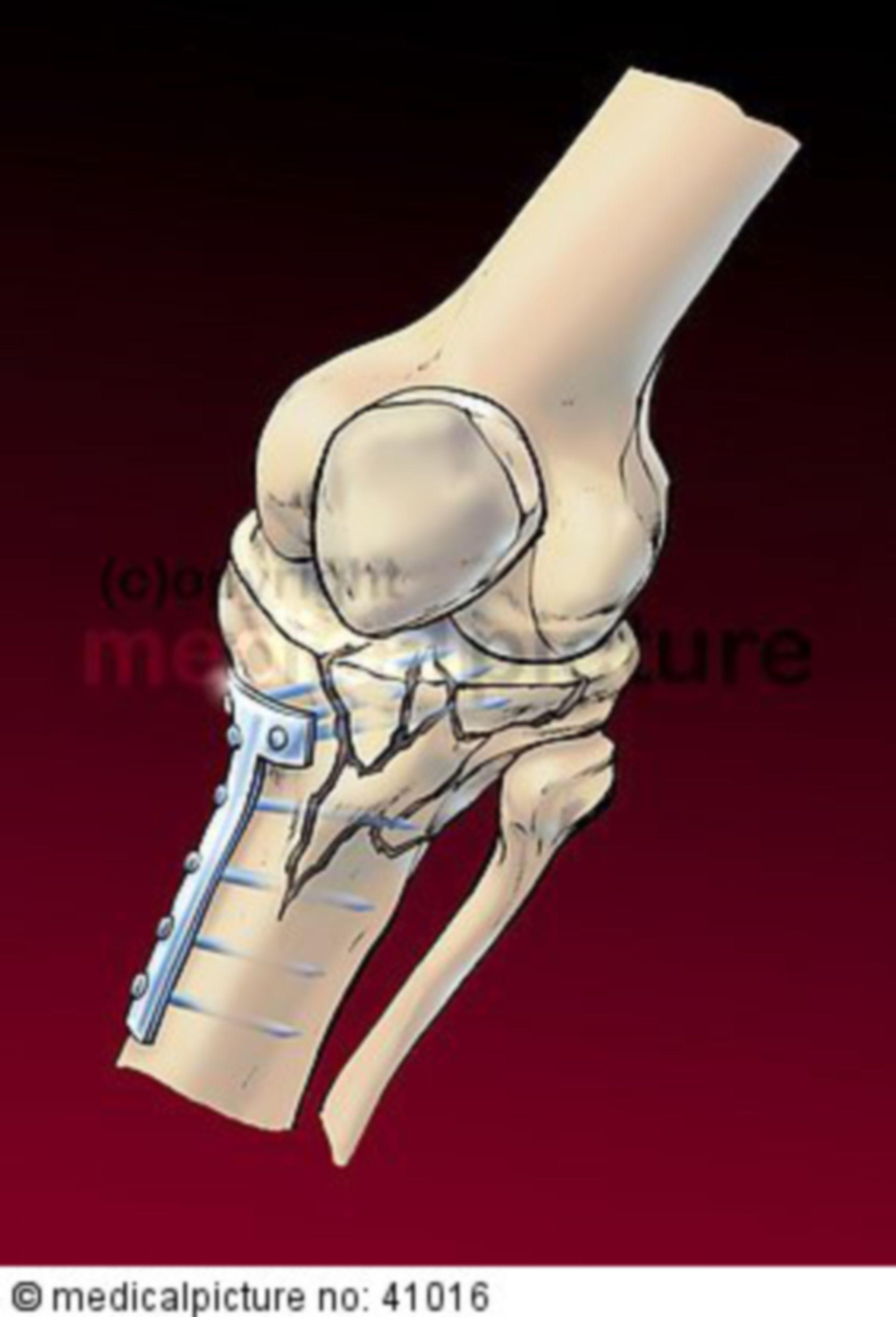 Kniearthrodese, arthrodesis