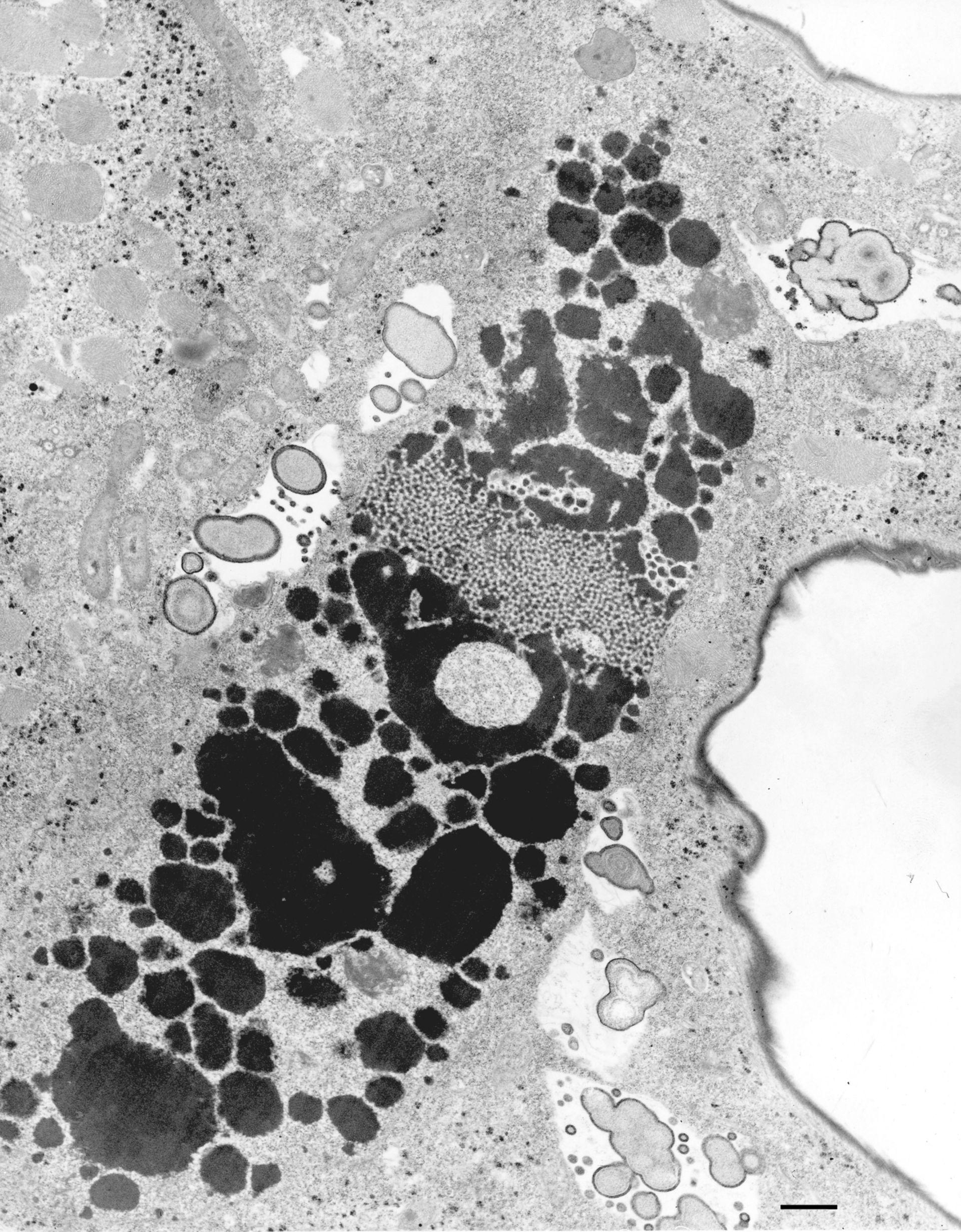 Euplotes sp. (Contractile vacuole) - CIL:12334