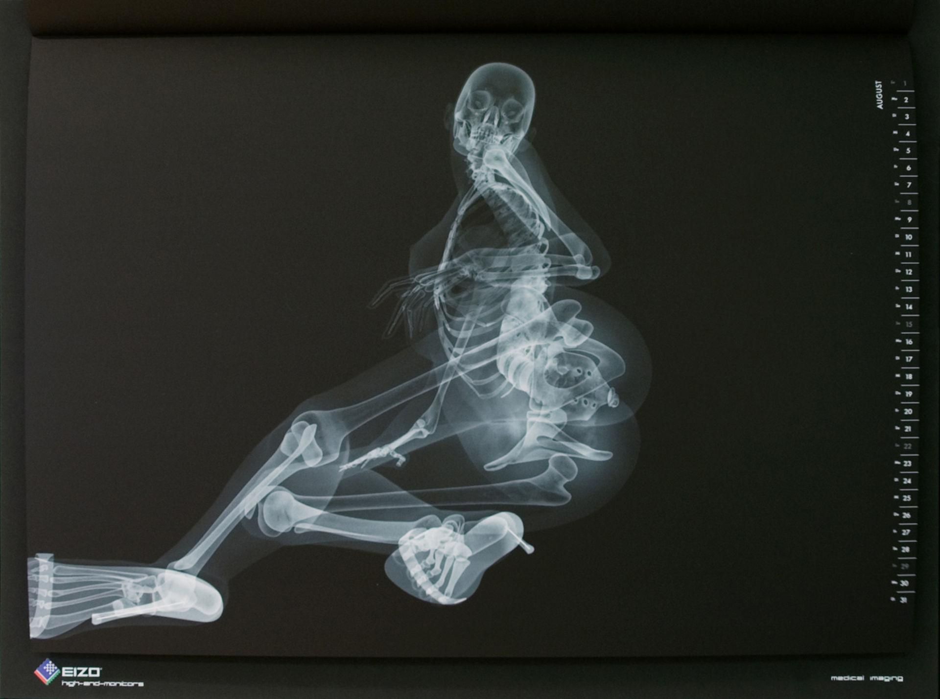 Röntgen-Pinup-Kalender von EIZO (August)