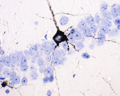 Alzheimerfibrillen in einem Maushirn nach der Injektion mit Hirngewebe eines Alzheimerpatienten. Foto: Universität Basel/Markus Tolnay