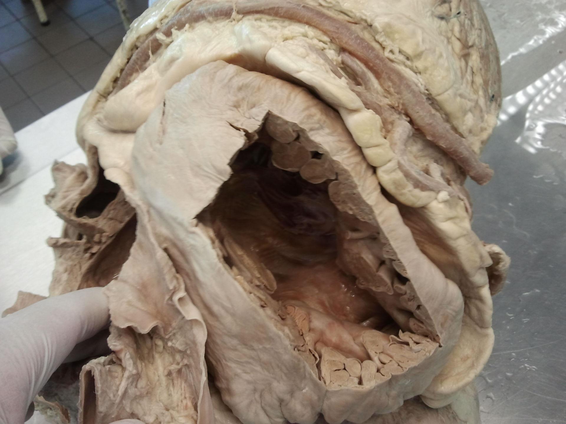 Preparation of an elephant's heart 1