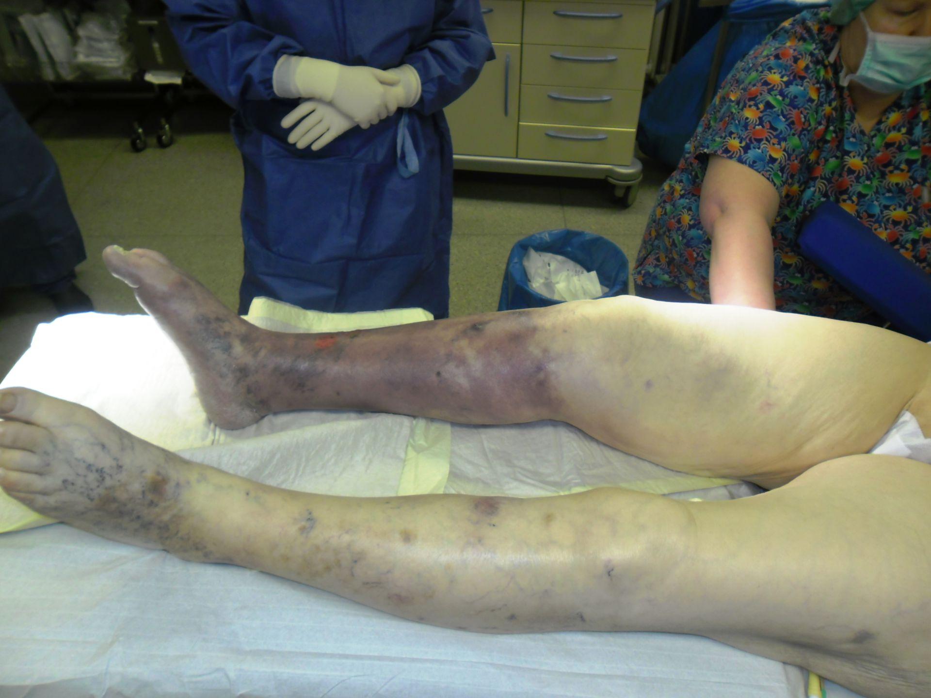 Ischemia acuta nella gamba destra