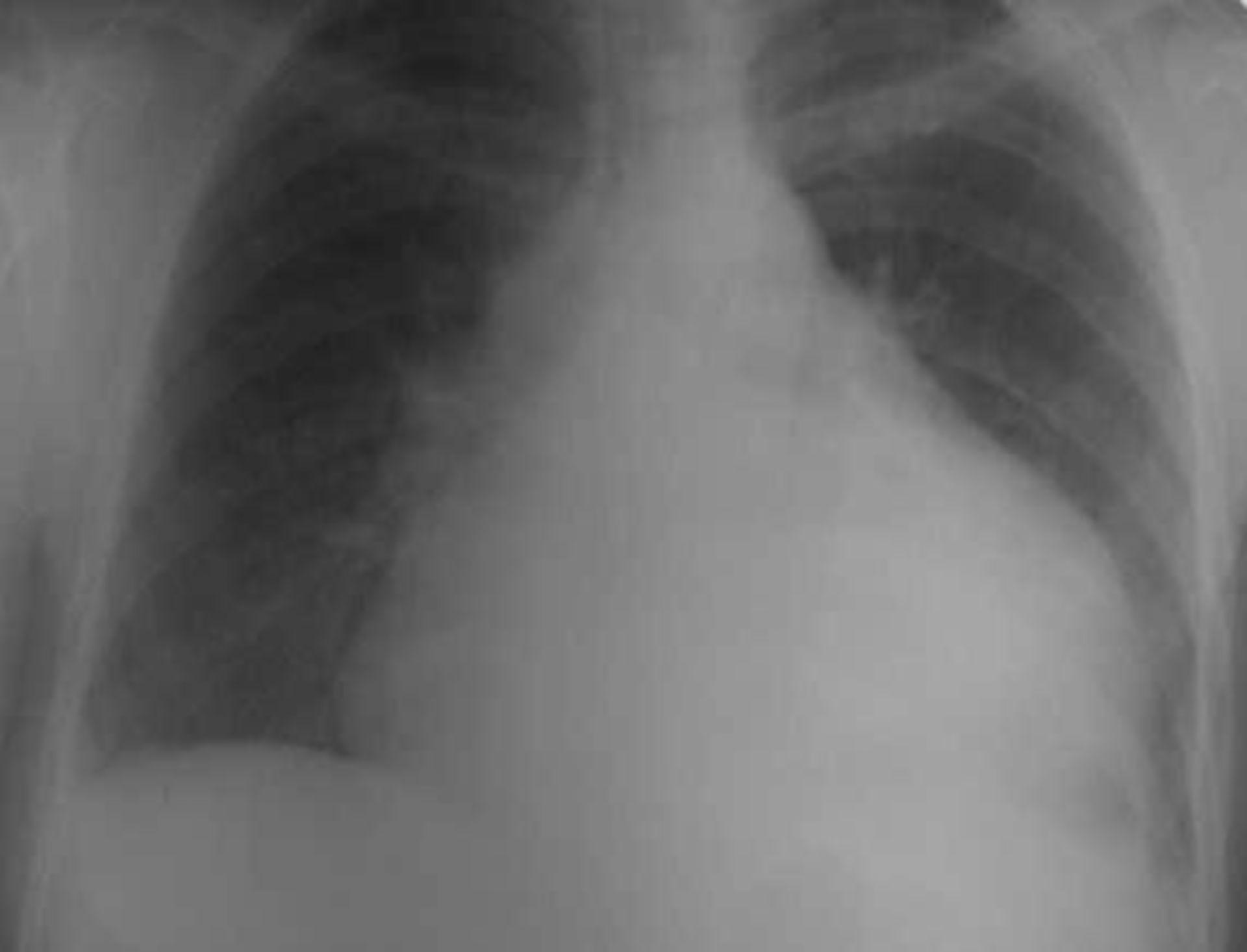 Tuberculosis (2)