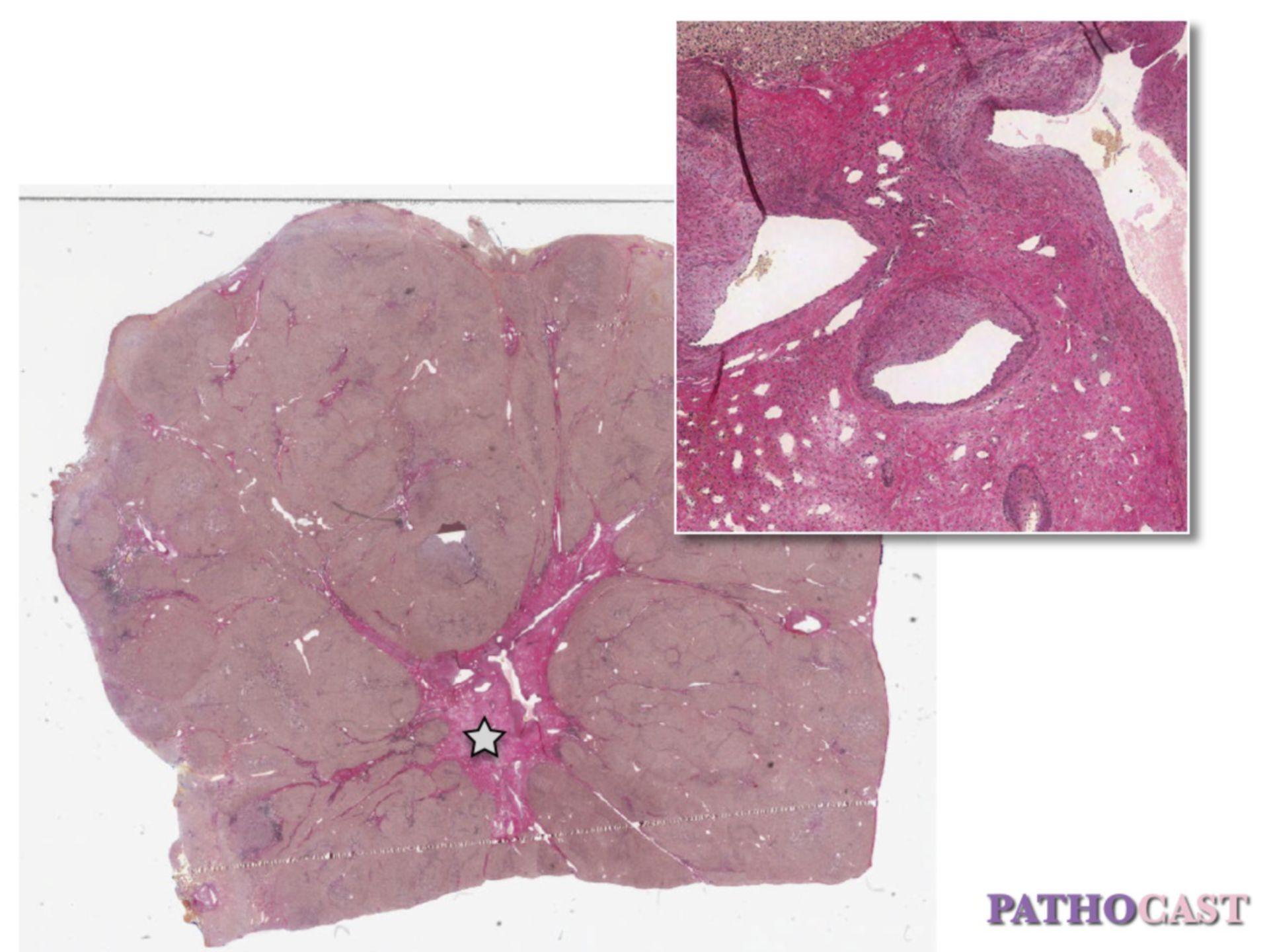 Iperplasia nodulare focale (FNH)