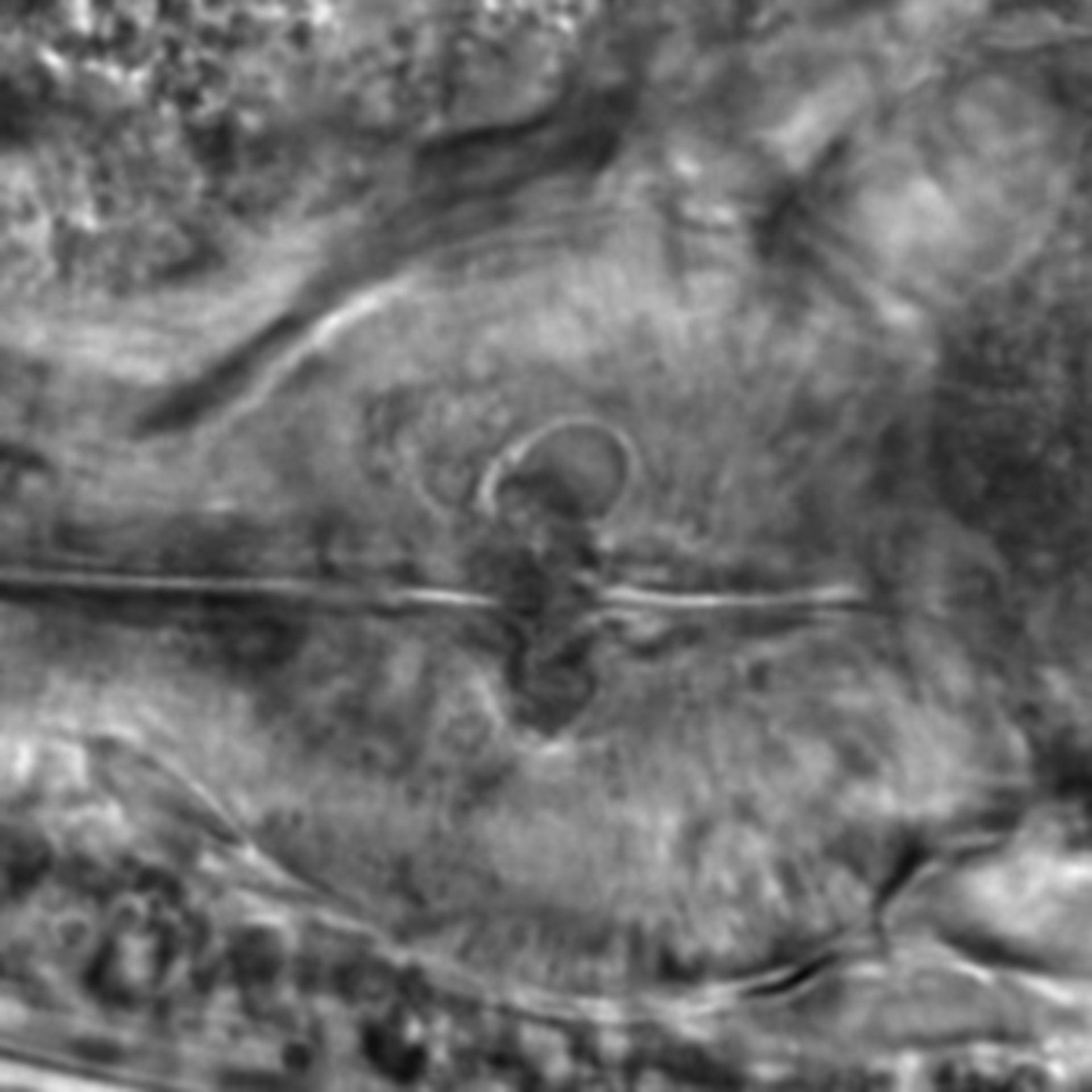 Caenorhabditis elegans - CIL:2242