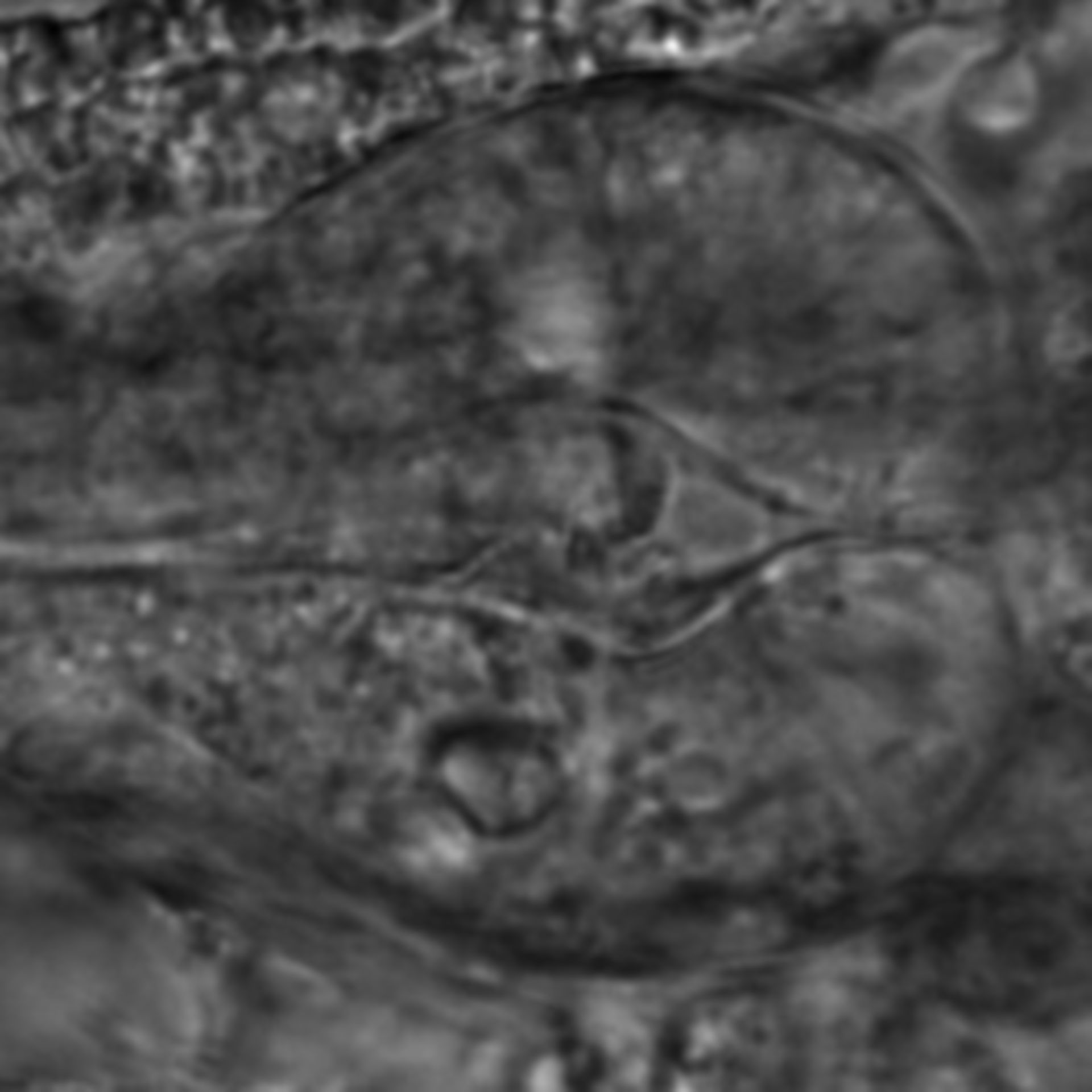 Caenorhabditis elegans - CIL:2776