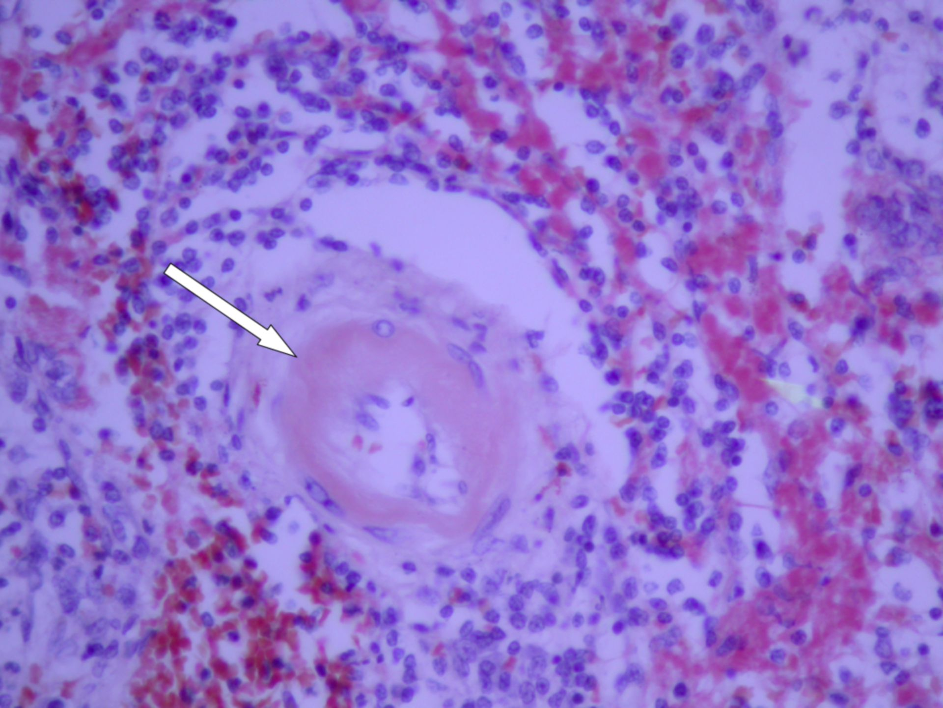 Peri-vascular amyloid A (histology)