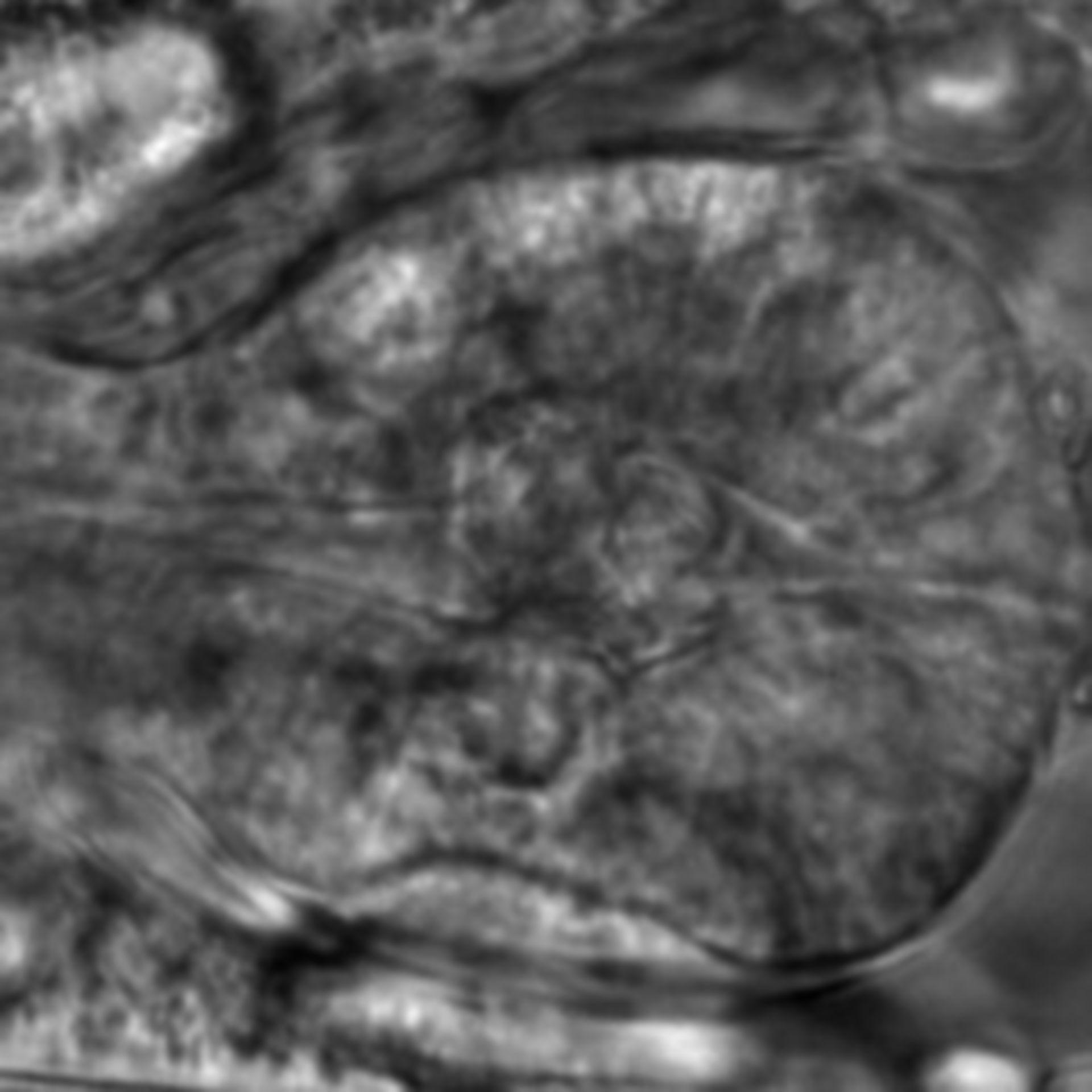 Caenorhabditis elegans - CIL:2703