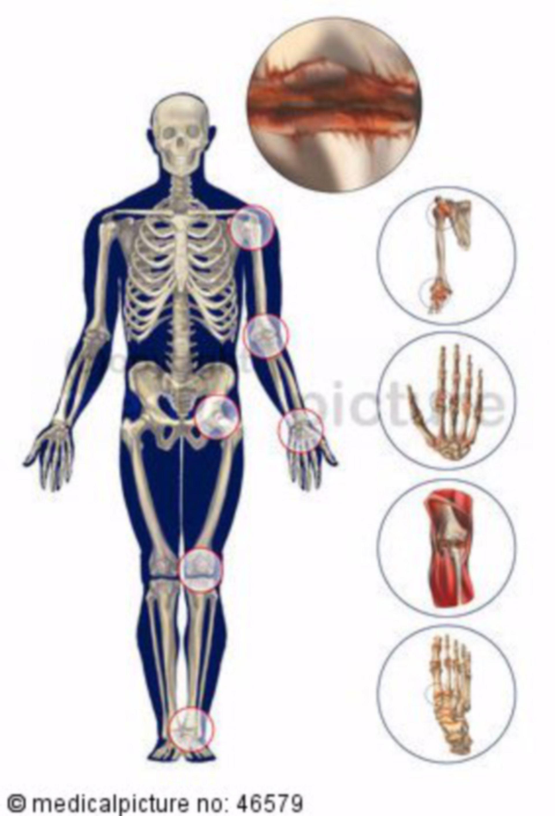 Menschliches Skelett mit Arthritis