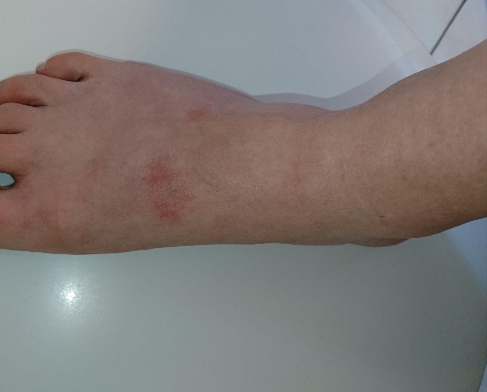 Neurodermitis Fußrücken