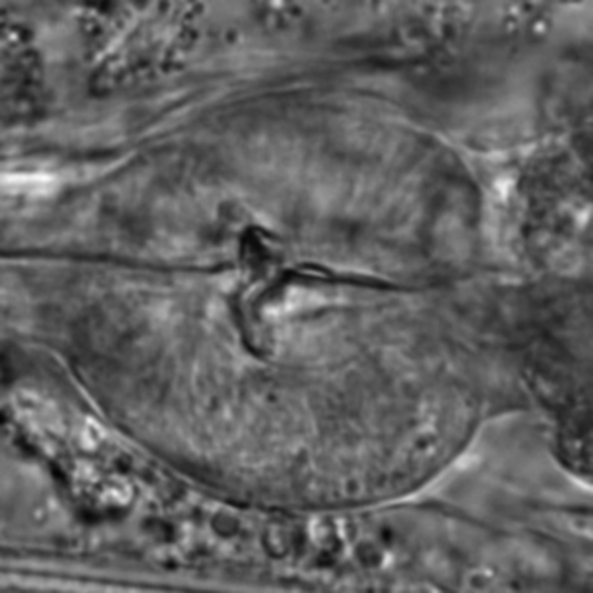Caenorhabditis elegans - CIL:1755