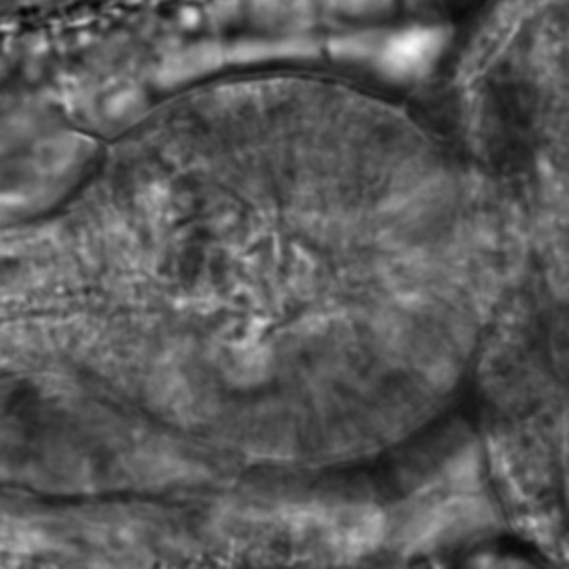 Caenorhabditis elegans - CIL:1991