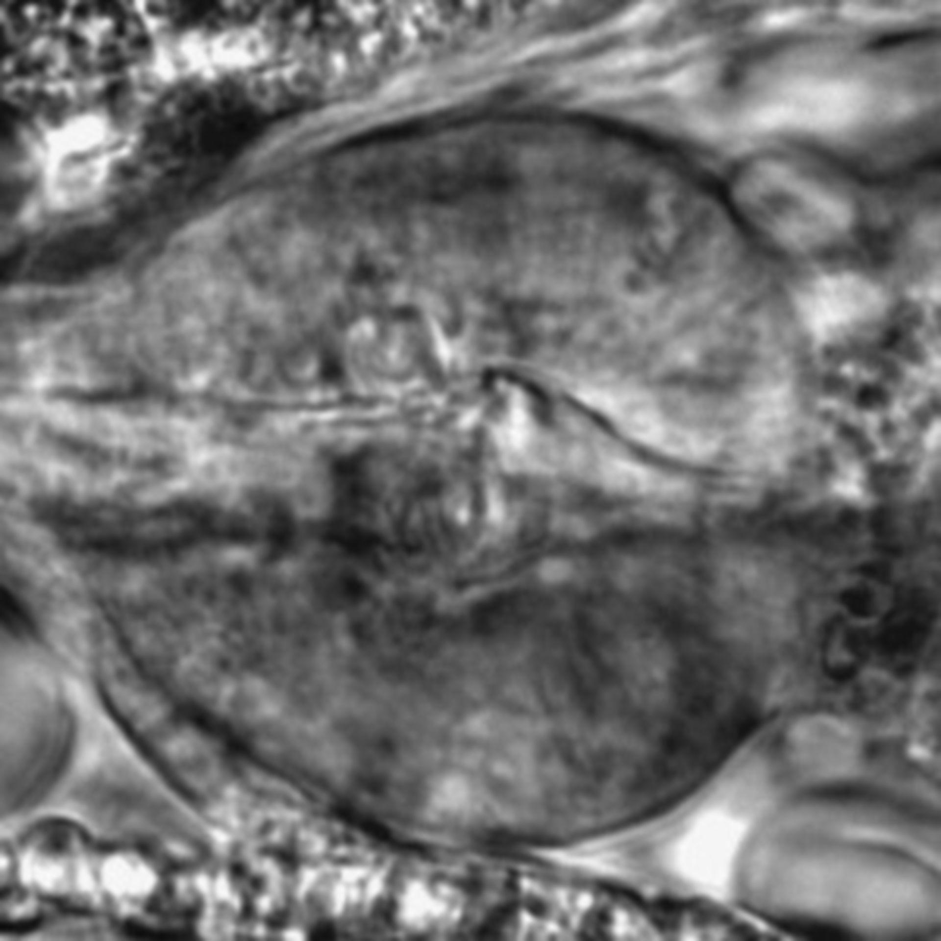Caenorhabditis elegans - CIL:2243