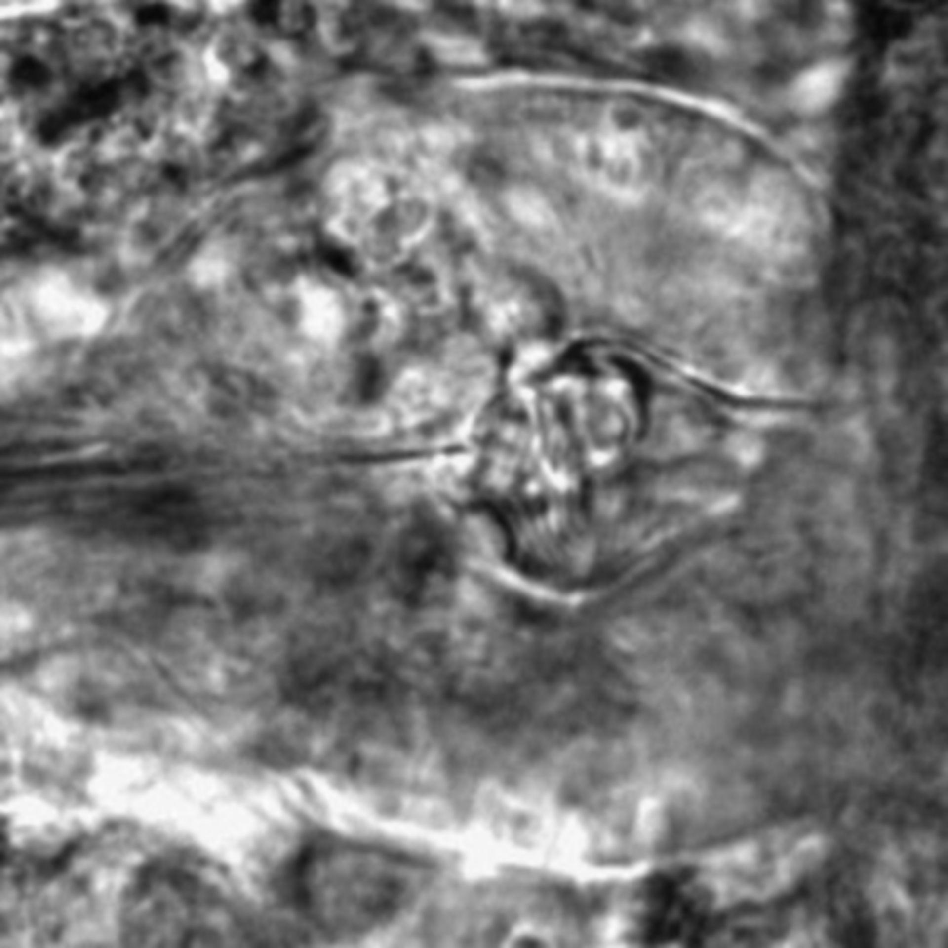 Caenorhabditis elegans - CIL:2816