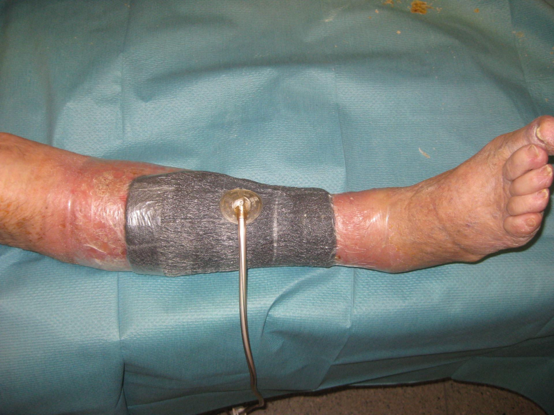 Ulcera cruris tenuta sotto vuoto con KCI