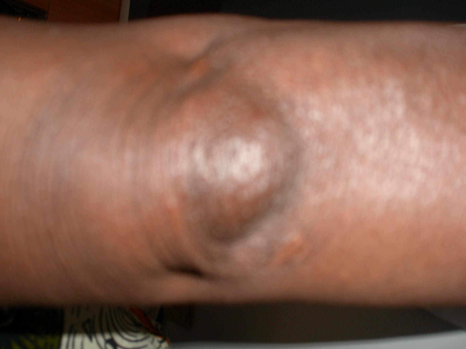 Bursitis Ellbogen