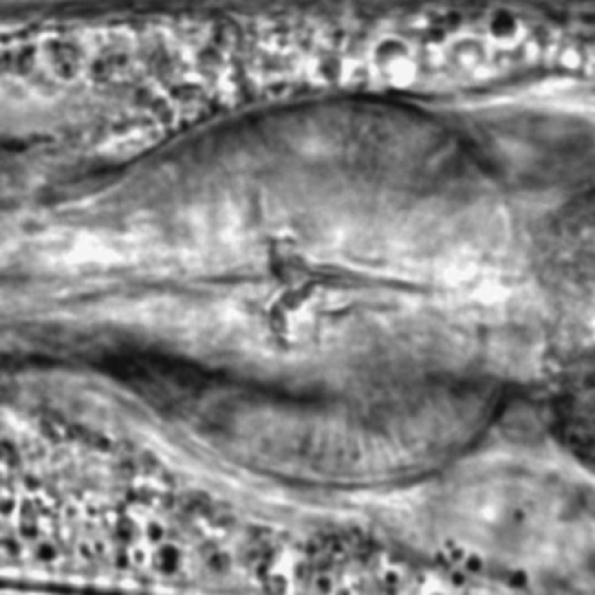 Caenorhabditis elegans - CIL:1735