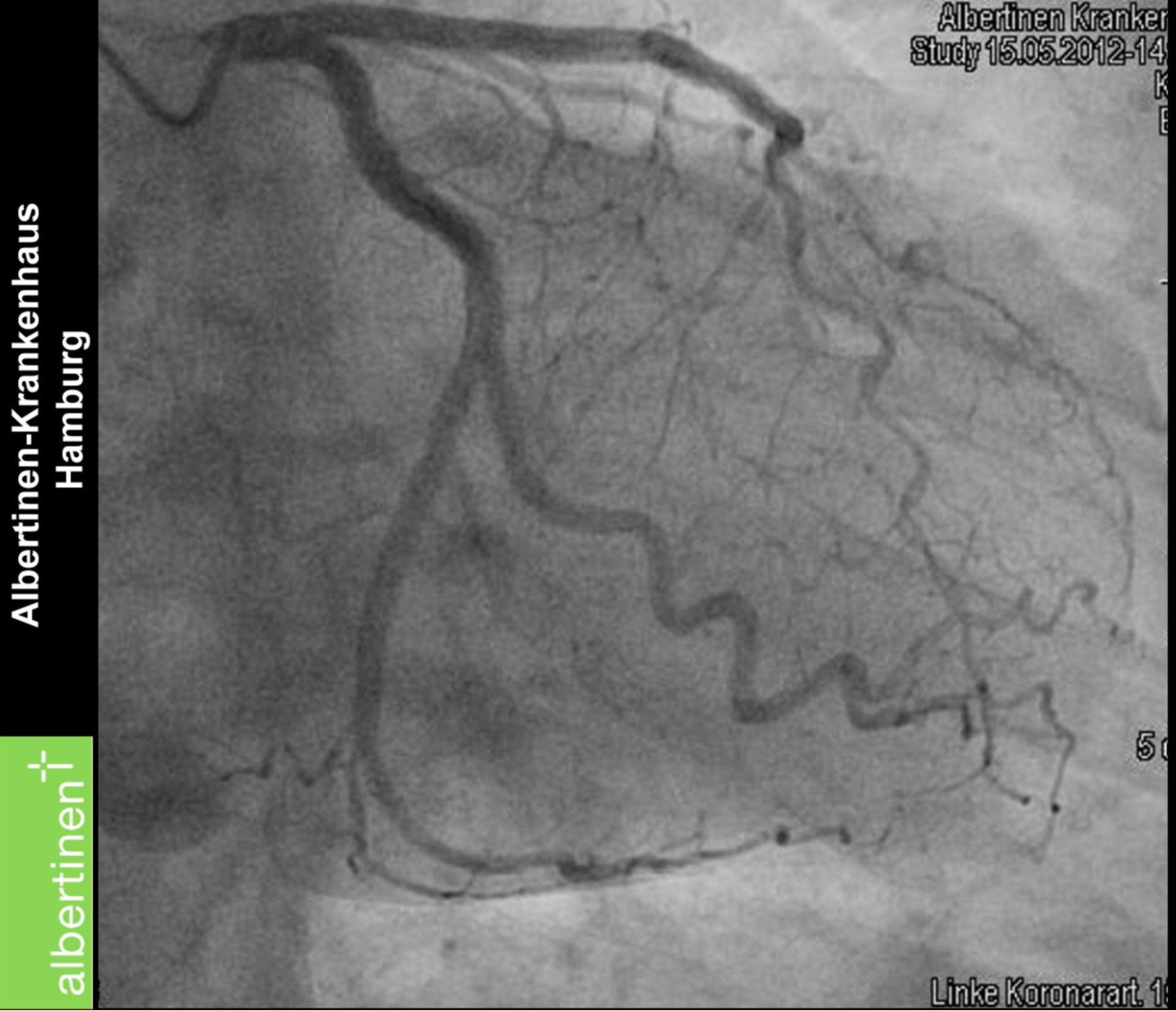 Left Coronary Artery (Coronary Angiography)