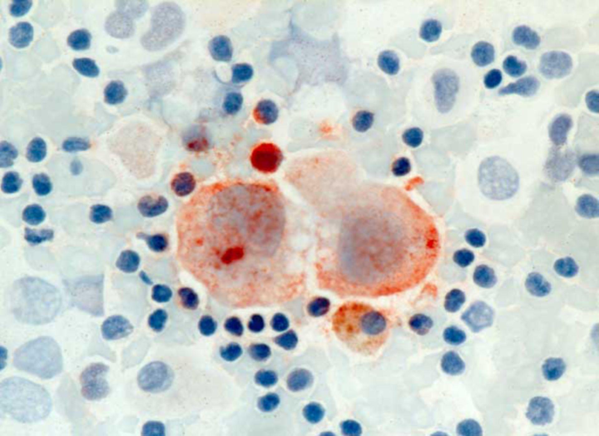 Zytomegalievirusinfekt