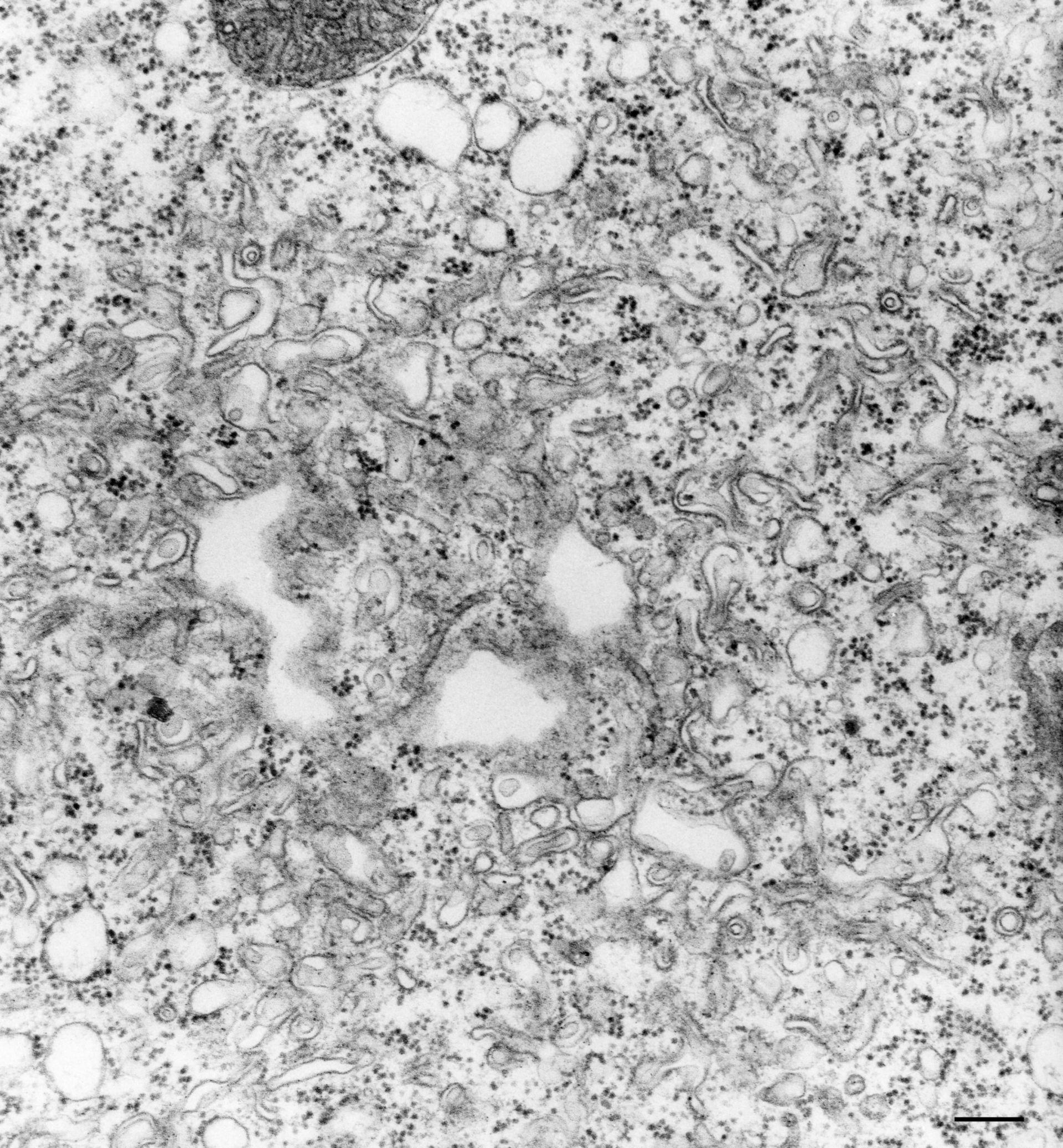 Vorticella convallaria (Spongiome) - CIL:36279
