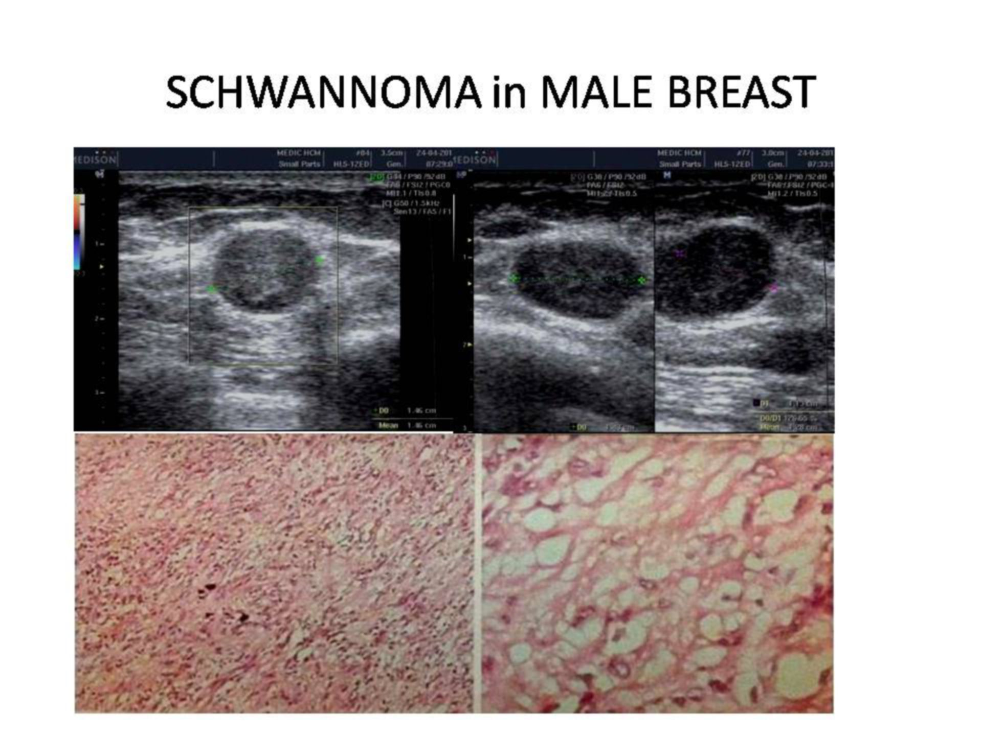 Schwannoma in Male Breast