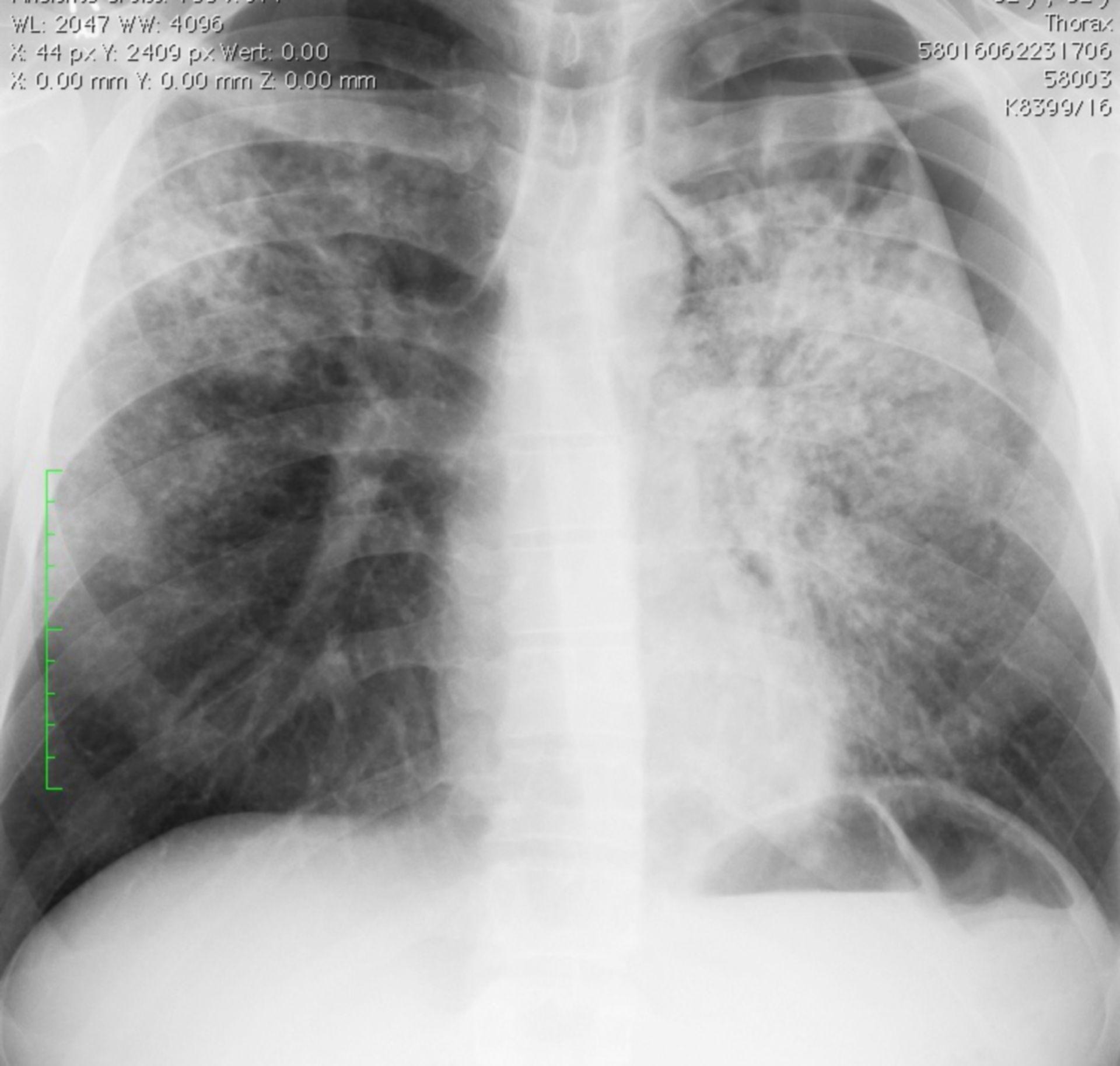 Pneumothorax links