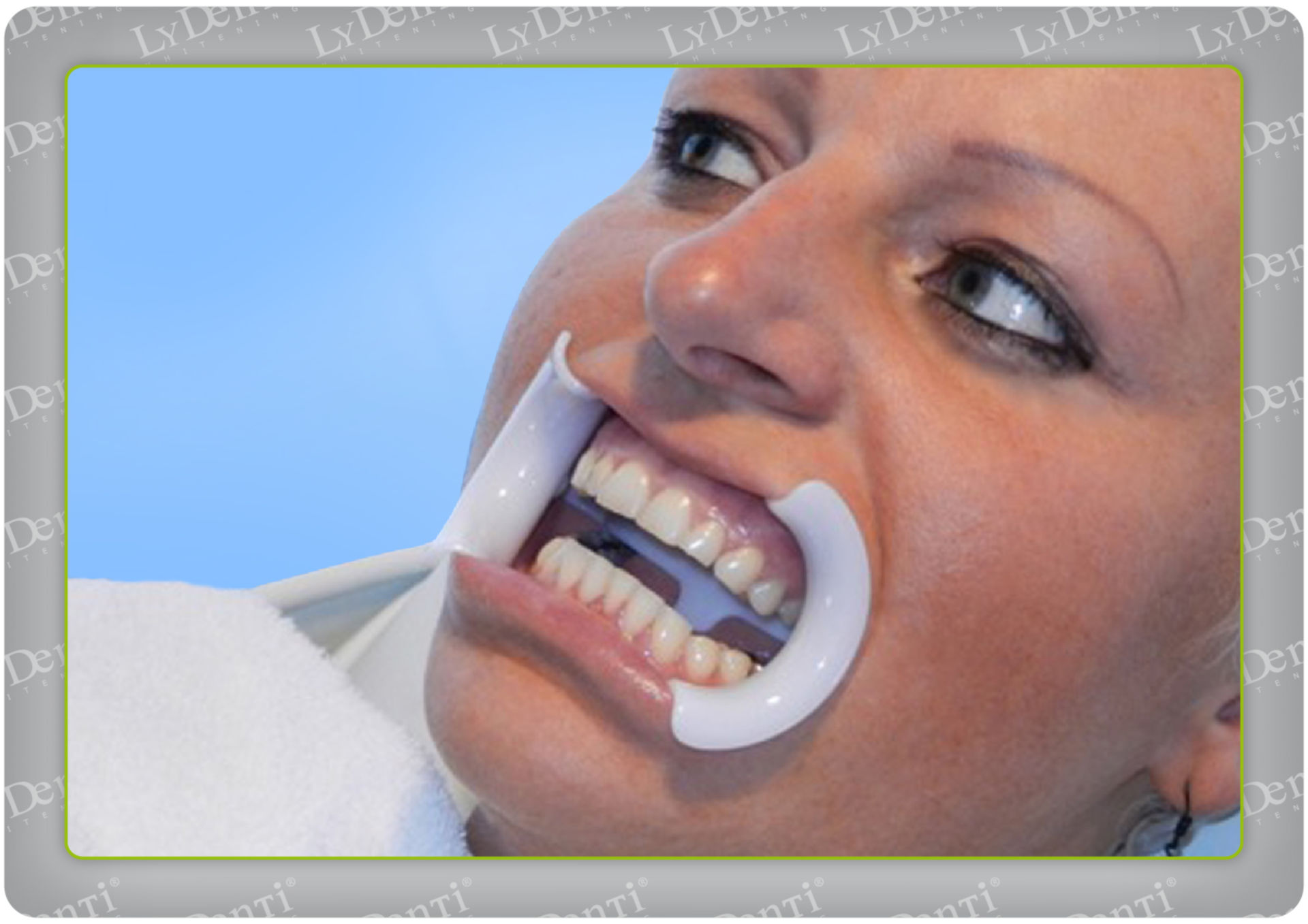 Blanqueamiento dental (14)