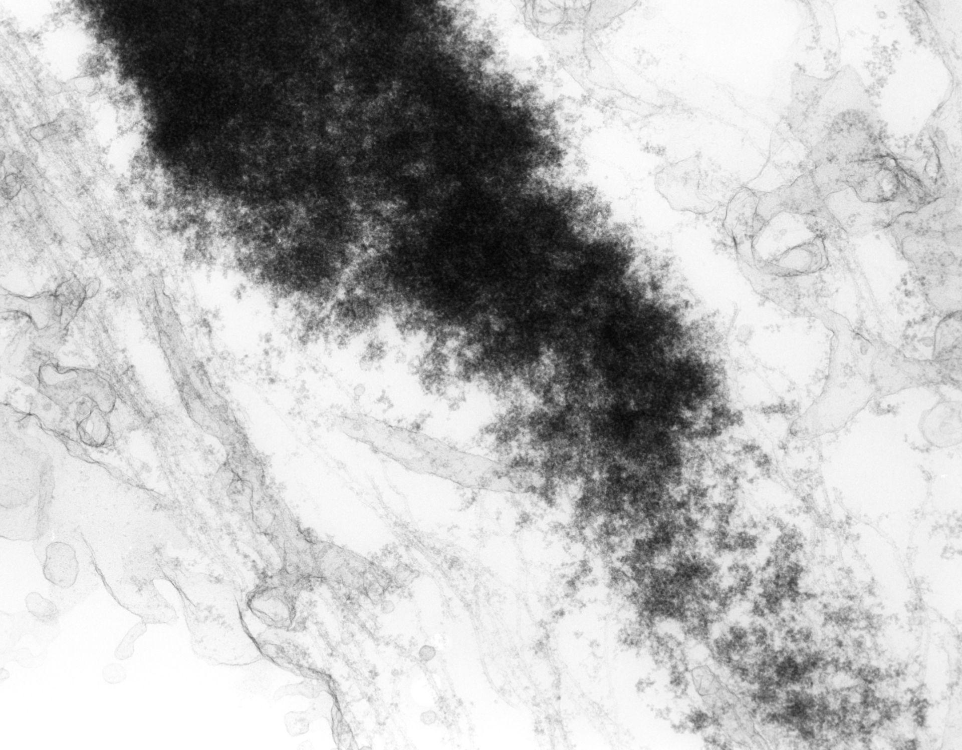 Haemanthus katharinae (Nuclear chromosome) - CIL:11853